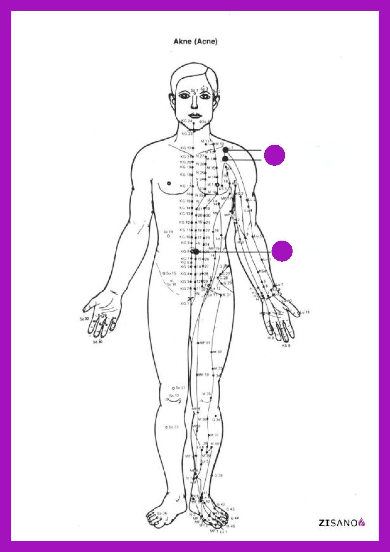 Früher Finnenausschlag genannt, ist eine Sammelbezeichnung für Erkrankungen des Talgdrüsenapparates und der Haarfollikel, die zunächst nichtentzündliche Mitesser (Komedonen) hervorbringen