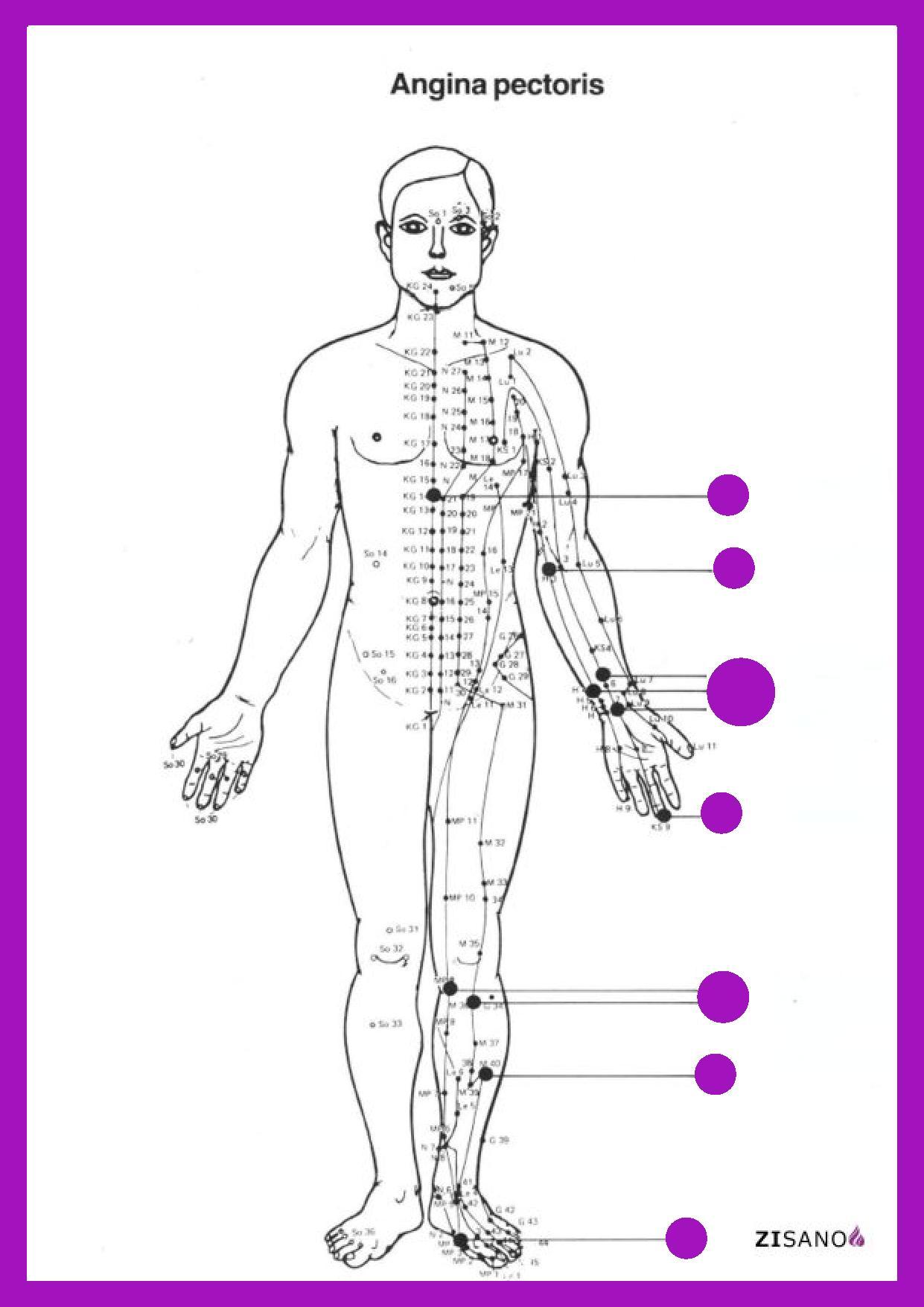 Meridiane - Angina pectoris - Behandlung