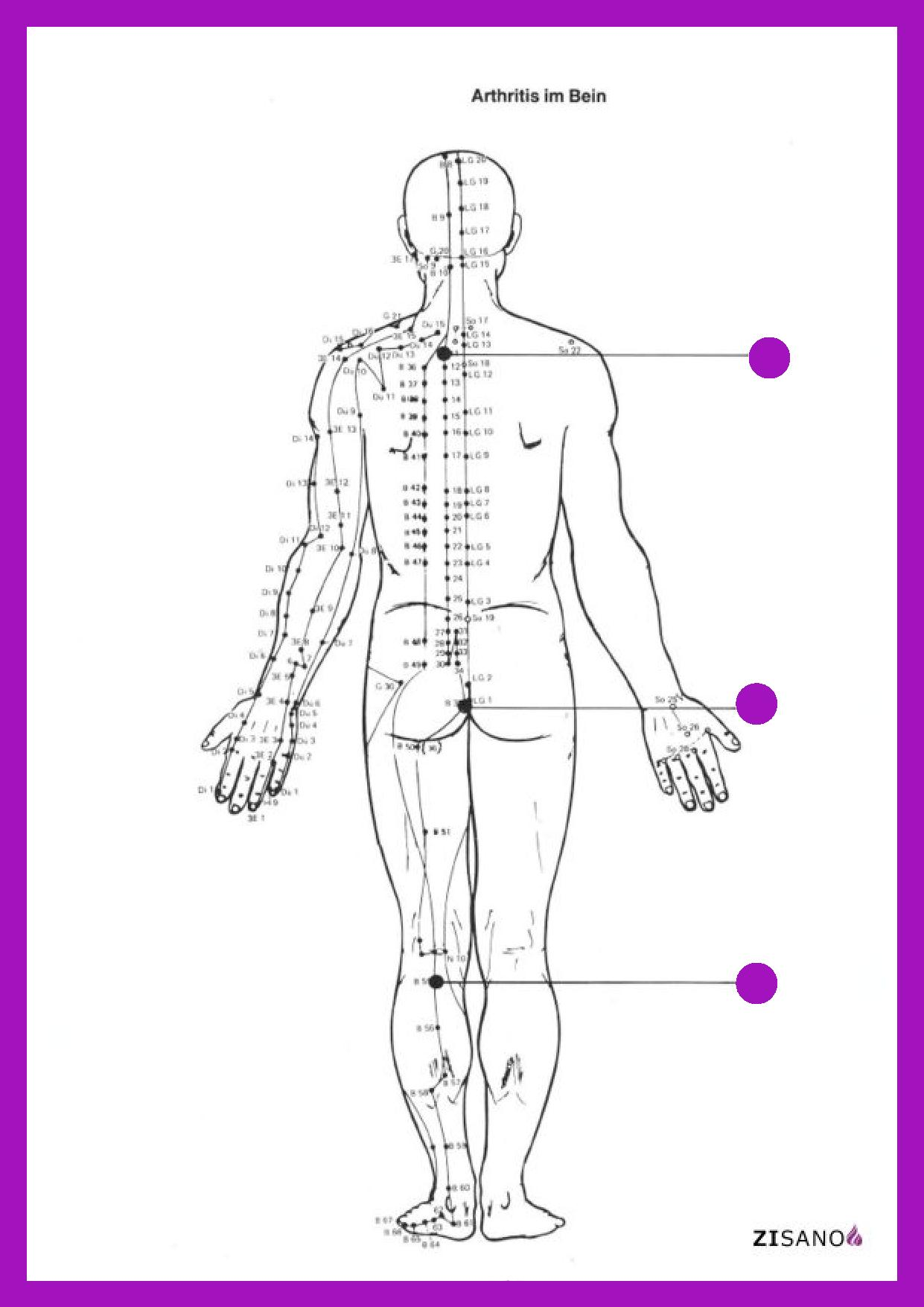 Meridiane - Arthritis - Behandlung