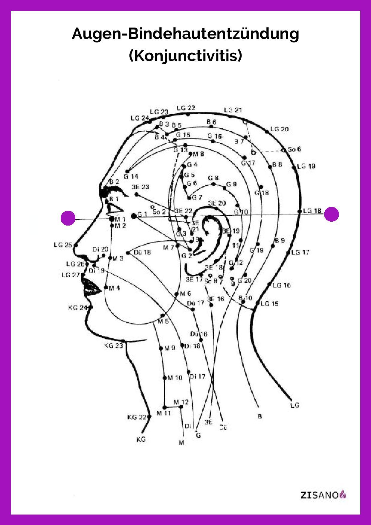 Meridiane - Bindehautentzündung - Behandlung
