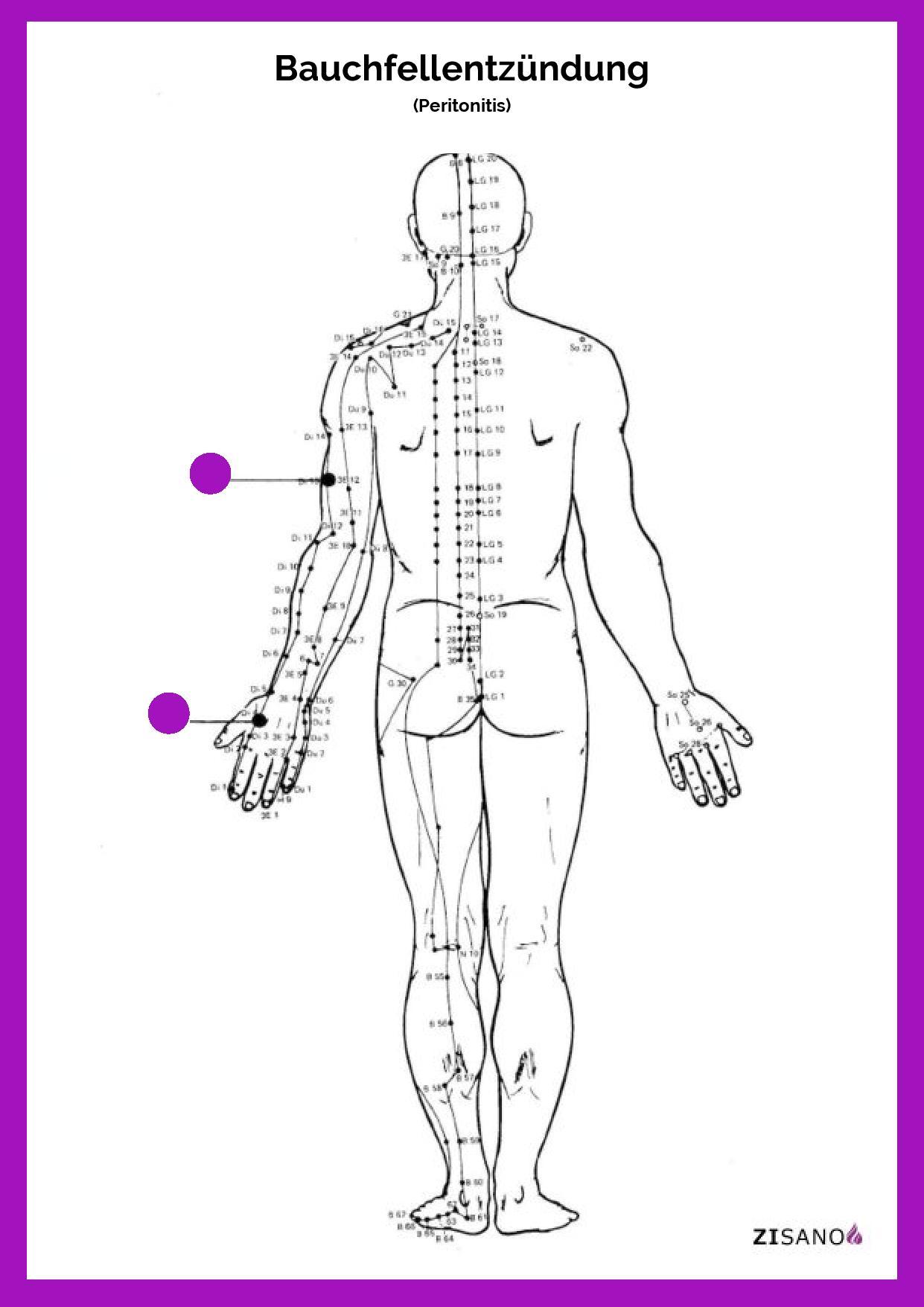Meridiane - Bauchfellentzündung - Schmerzlinderung