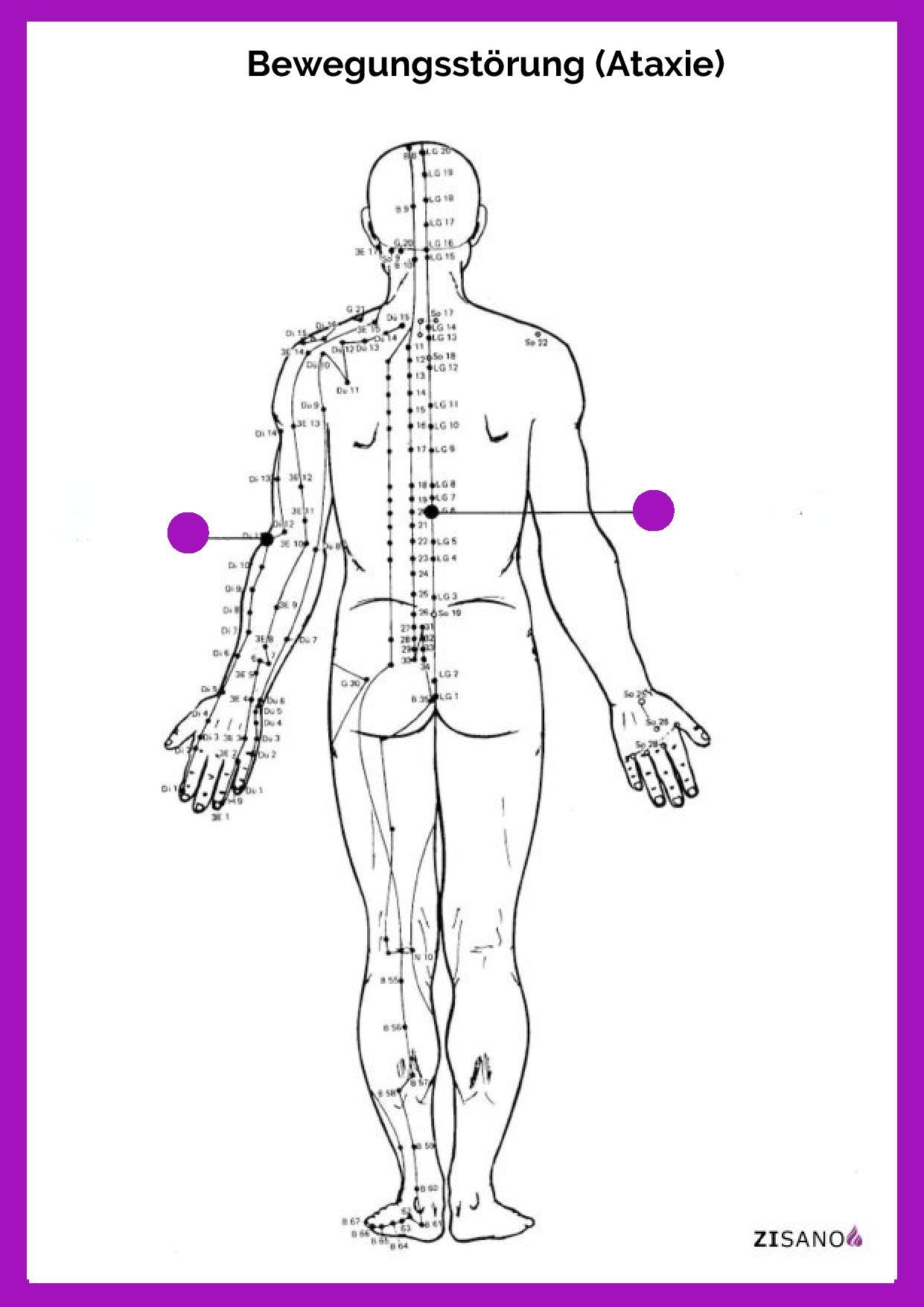 Meridiane - Bewegungsstörung (Ataxie)- Behandlung
