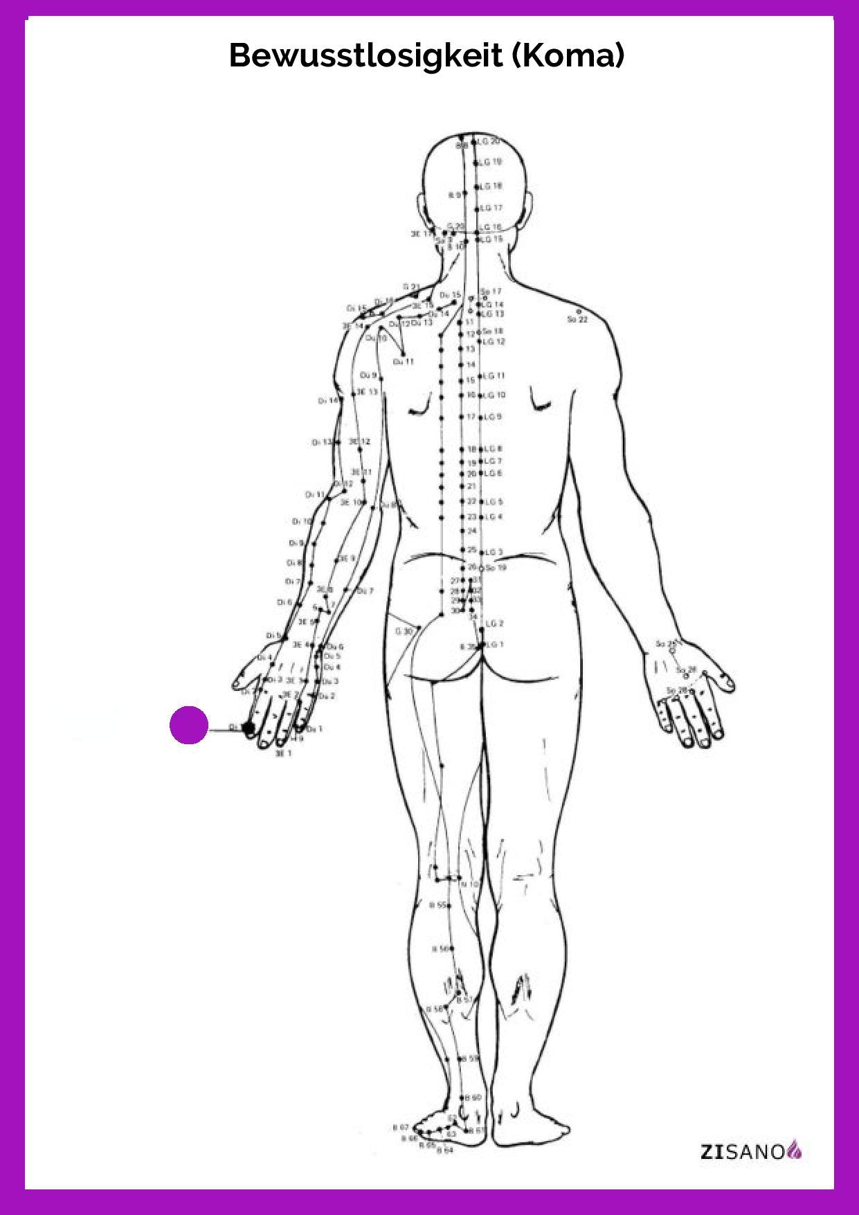 Meridiane - Bewusstlosigkeit (Koma)- Behandlung