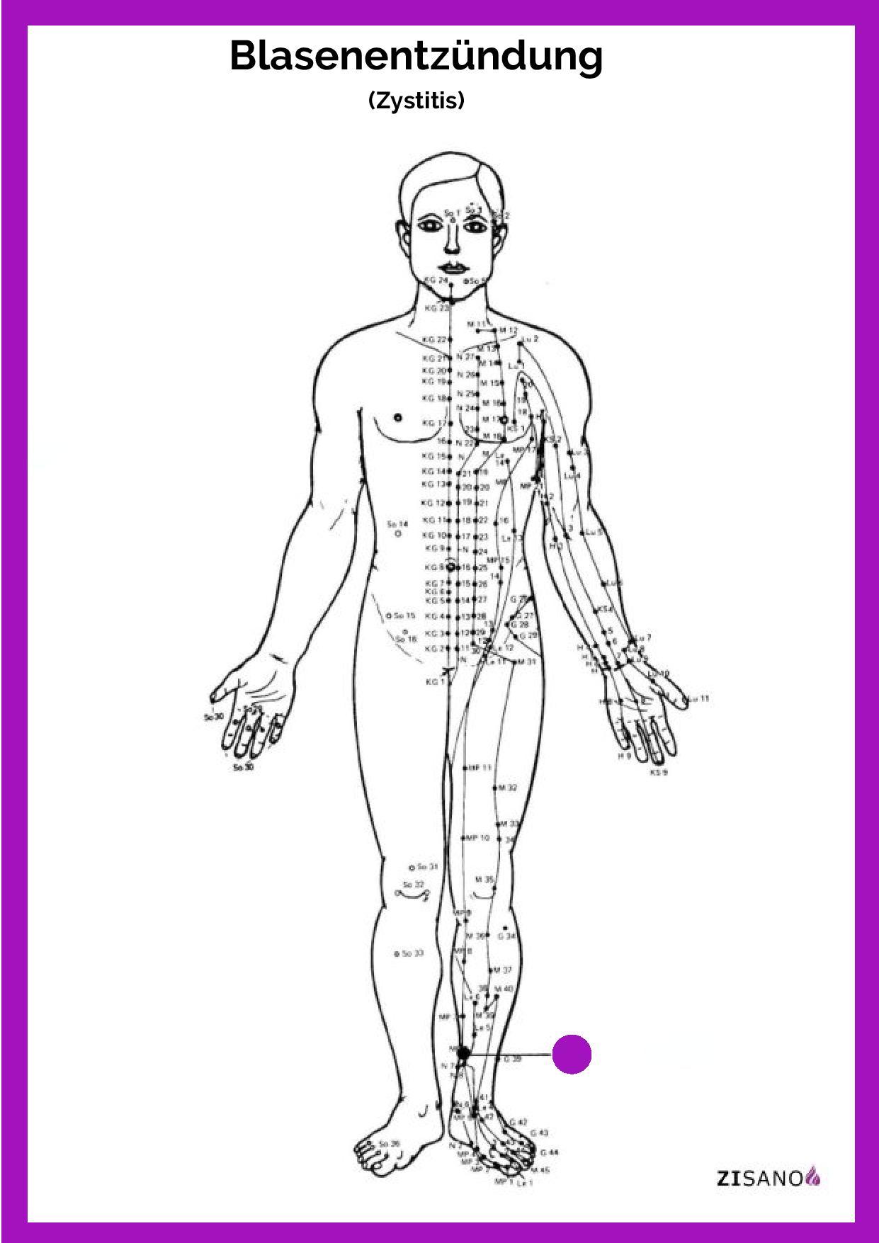 Meridiane - Blasenentzündung (Zystitis) - Schmerzlinderung