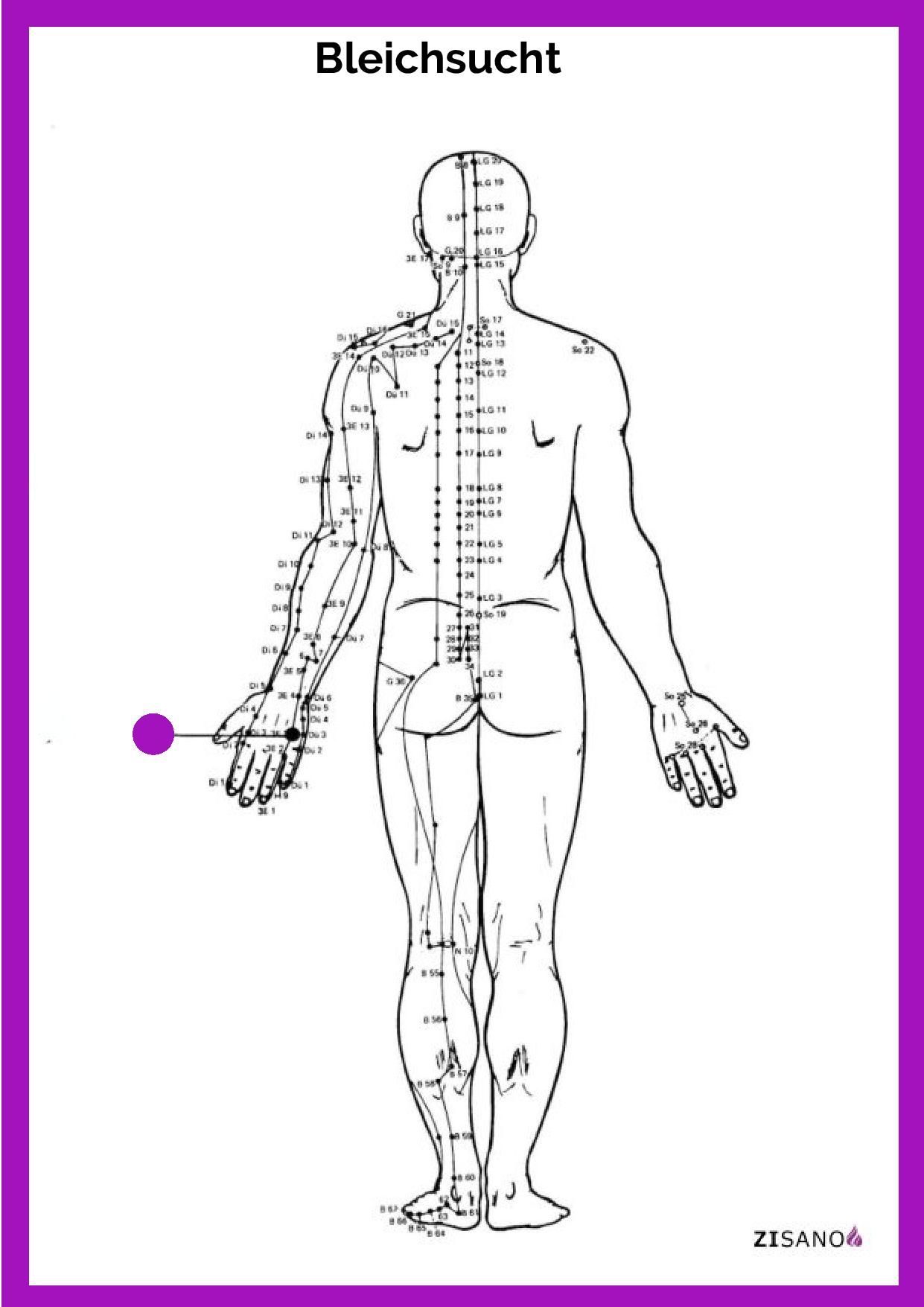 Meridiane - Bleichsucht - Behandlung