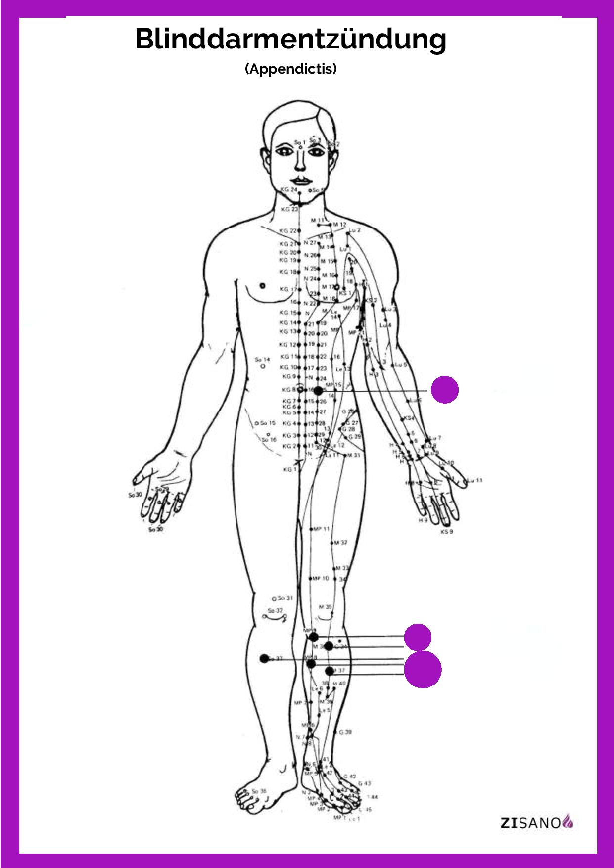 Meridiane - Blinddarmentzündung (Appendictis) - Schmerzlinderung