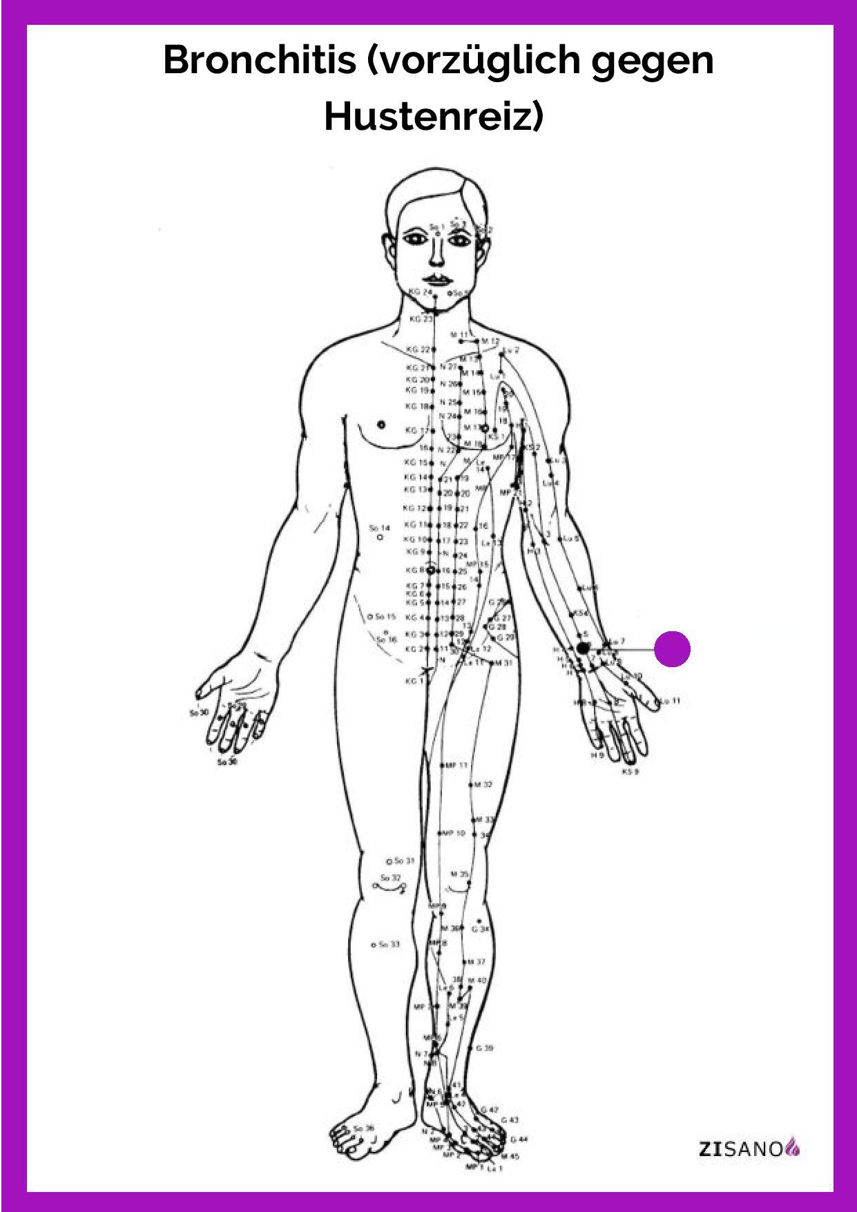 Meridiane - Bronchitis - Behandlung