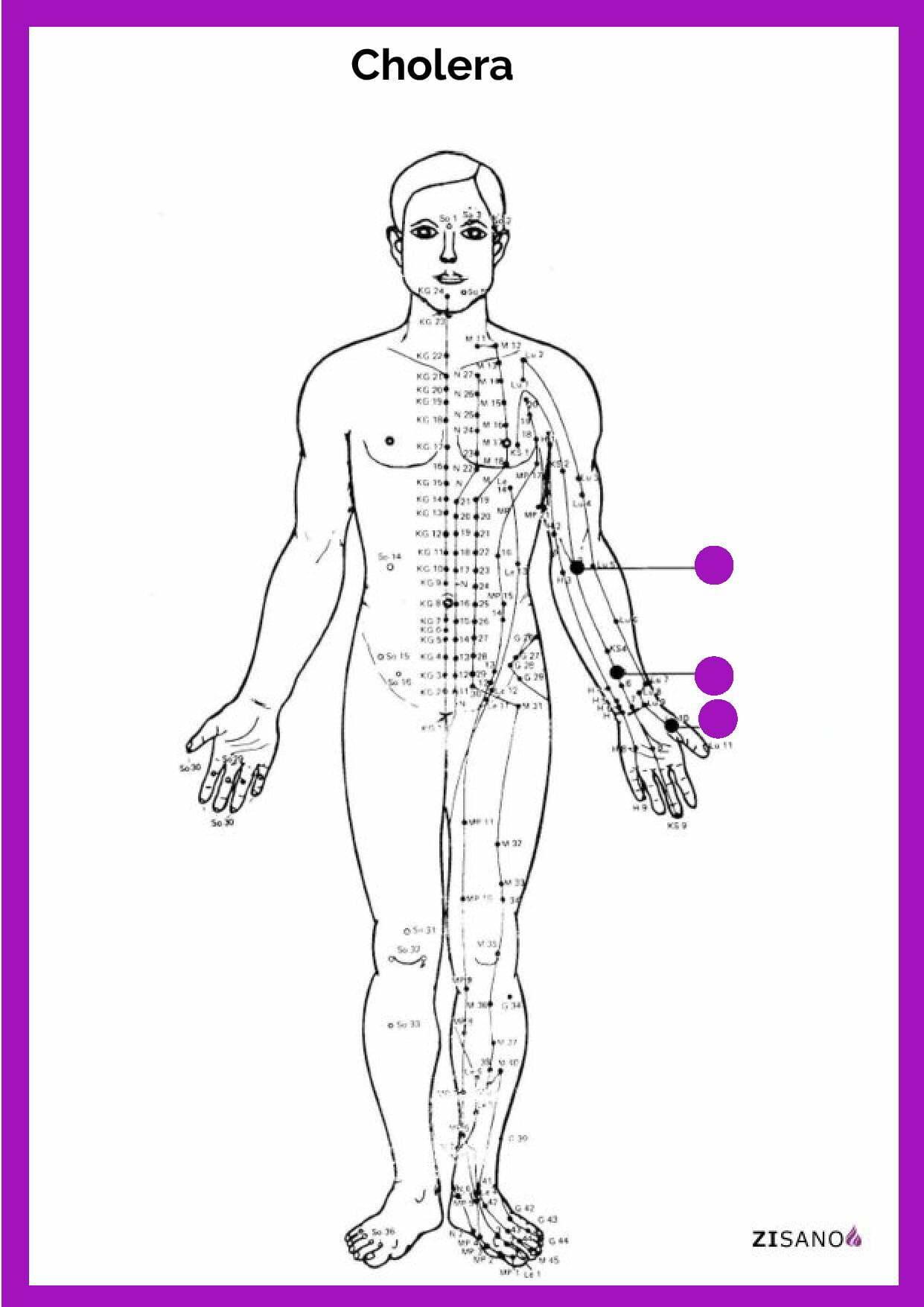 Meridiane - Cholera - Behandlung