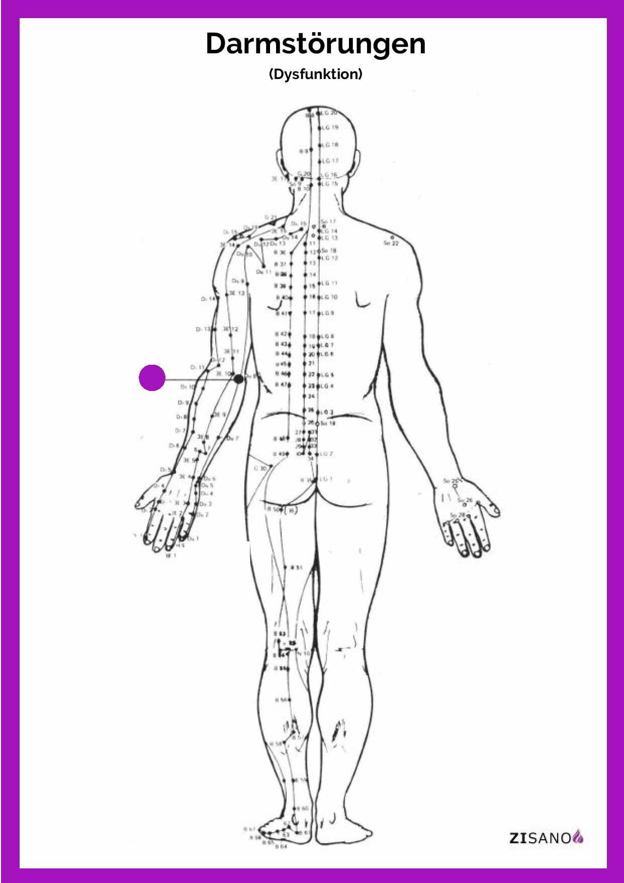 Meridiane - Darmstörung - Schmerzlinderung