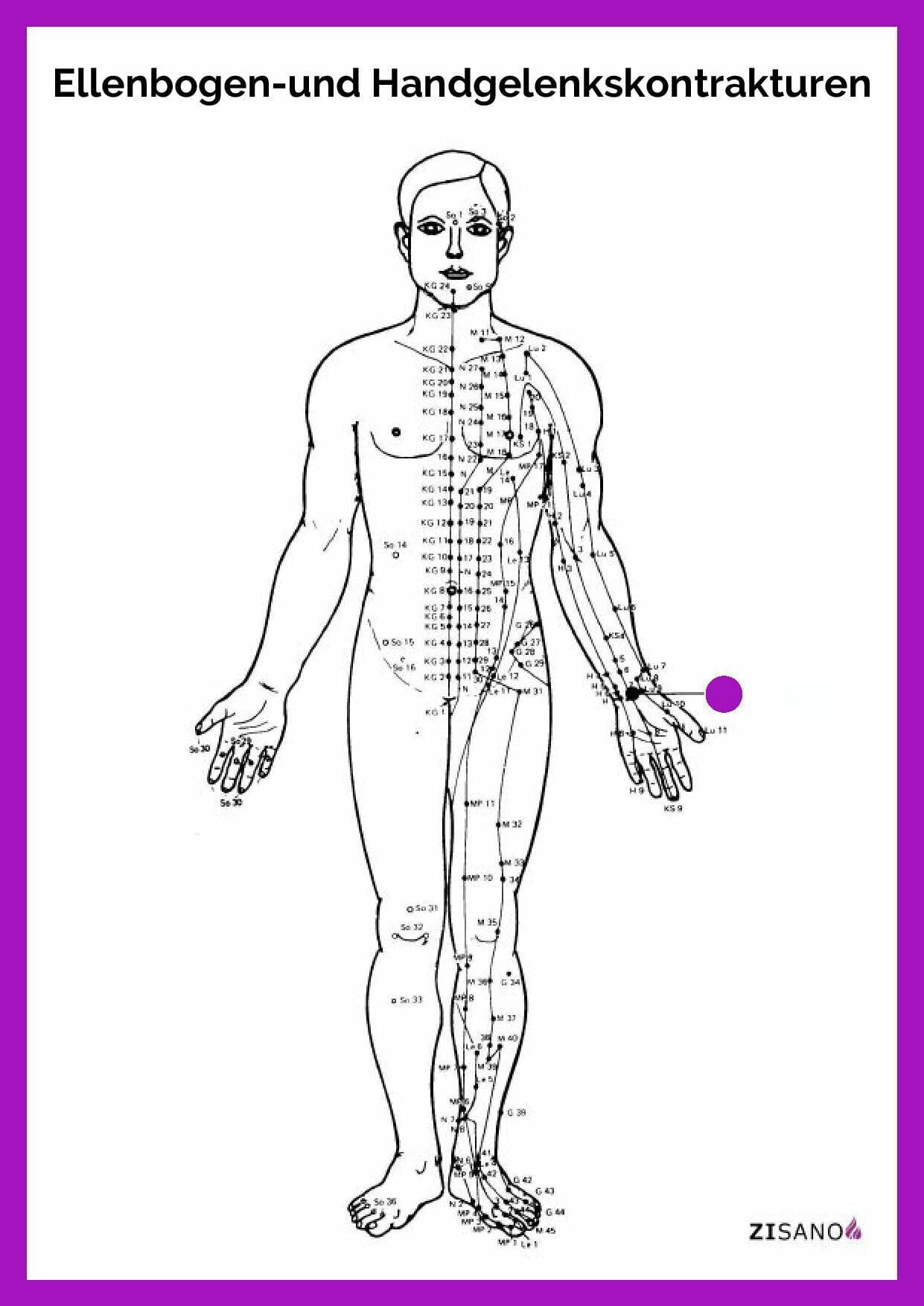 Meridiane - Ellenbogen- und Handgelenkskontrakturen - Schmerzlinderung