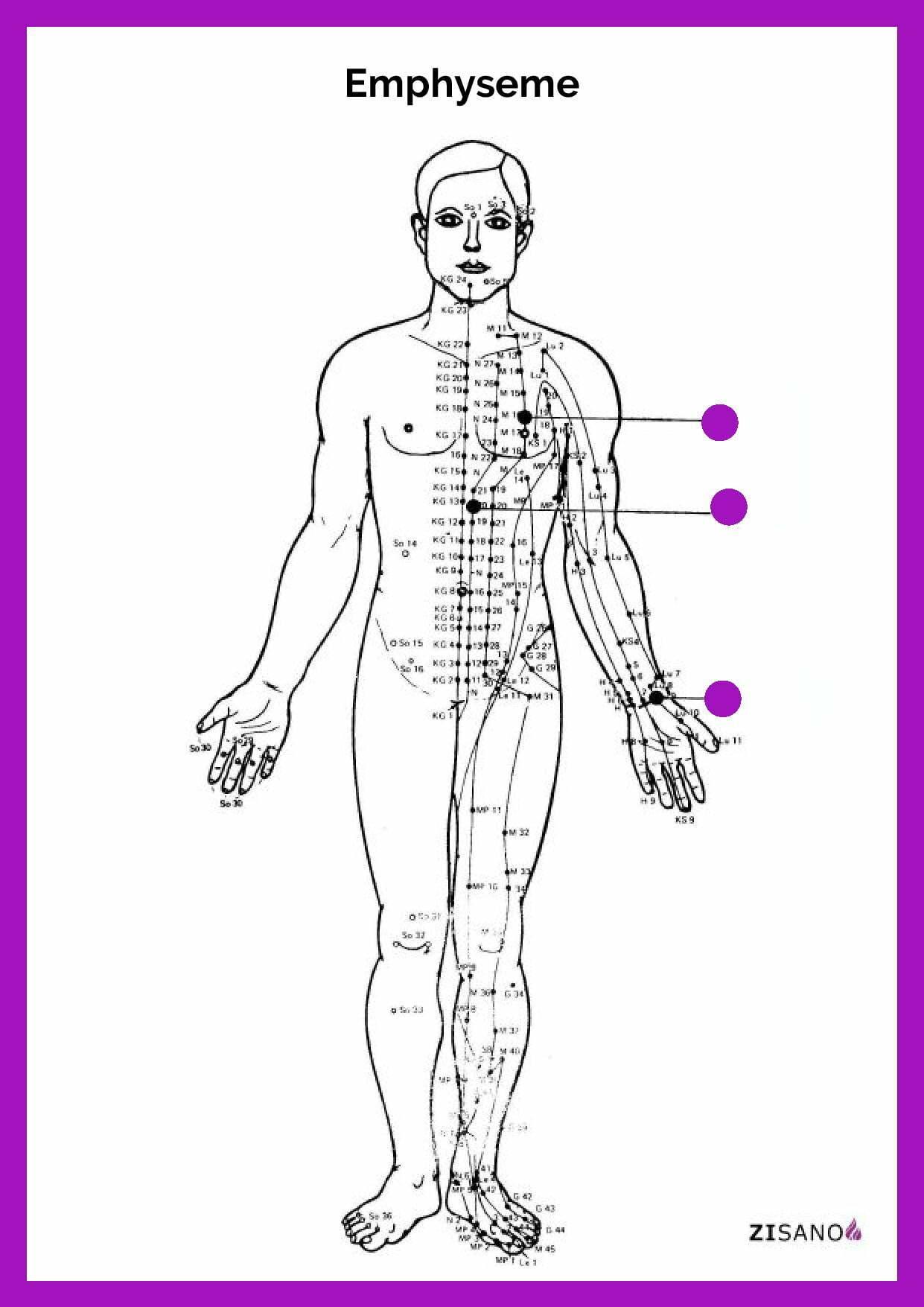 Meridiane - Emphyseme - Behandlung