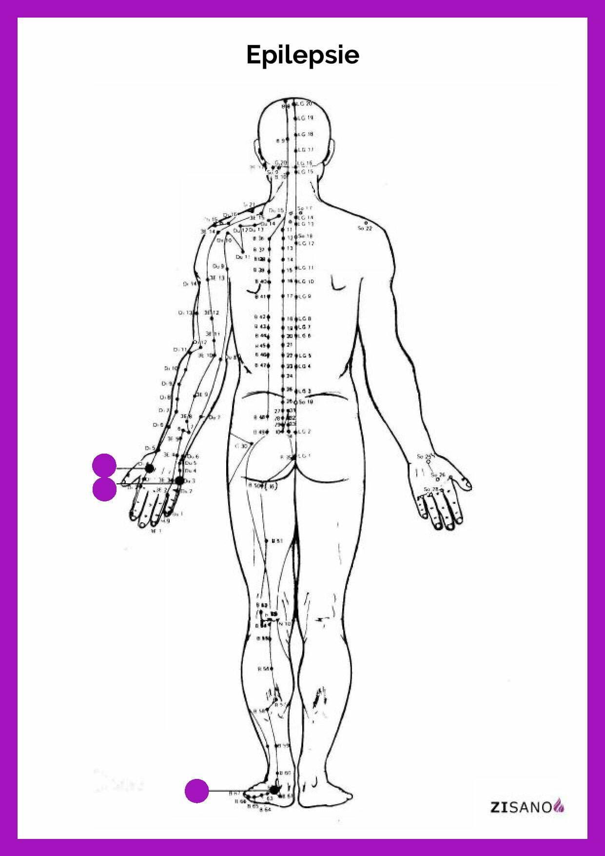 Meridiane - Epilepsie - Behandlung