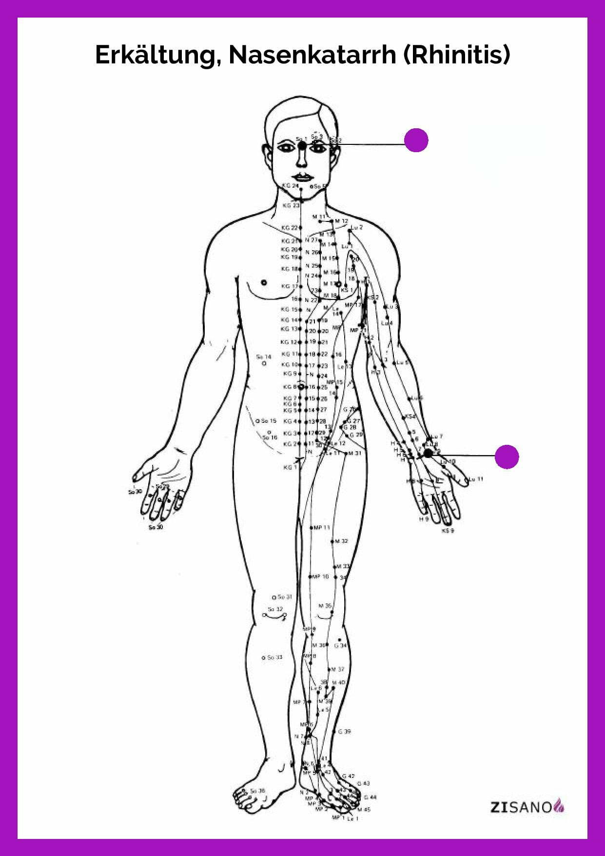 Meridiane - Erkältung, Nasenkatarrh (Rhinitis) - Behandlung