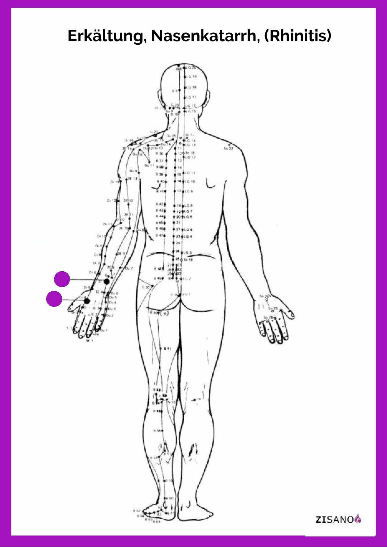 Meridiane - Erkältung (Rhinitis)- Behandlung