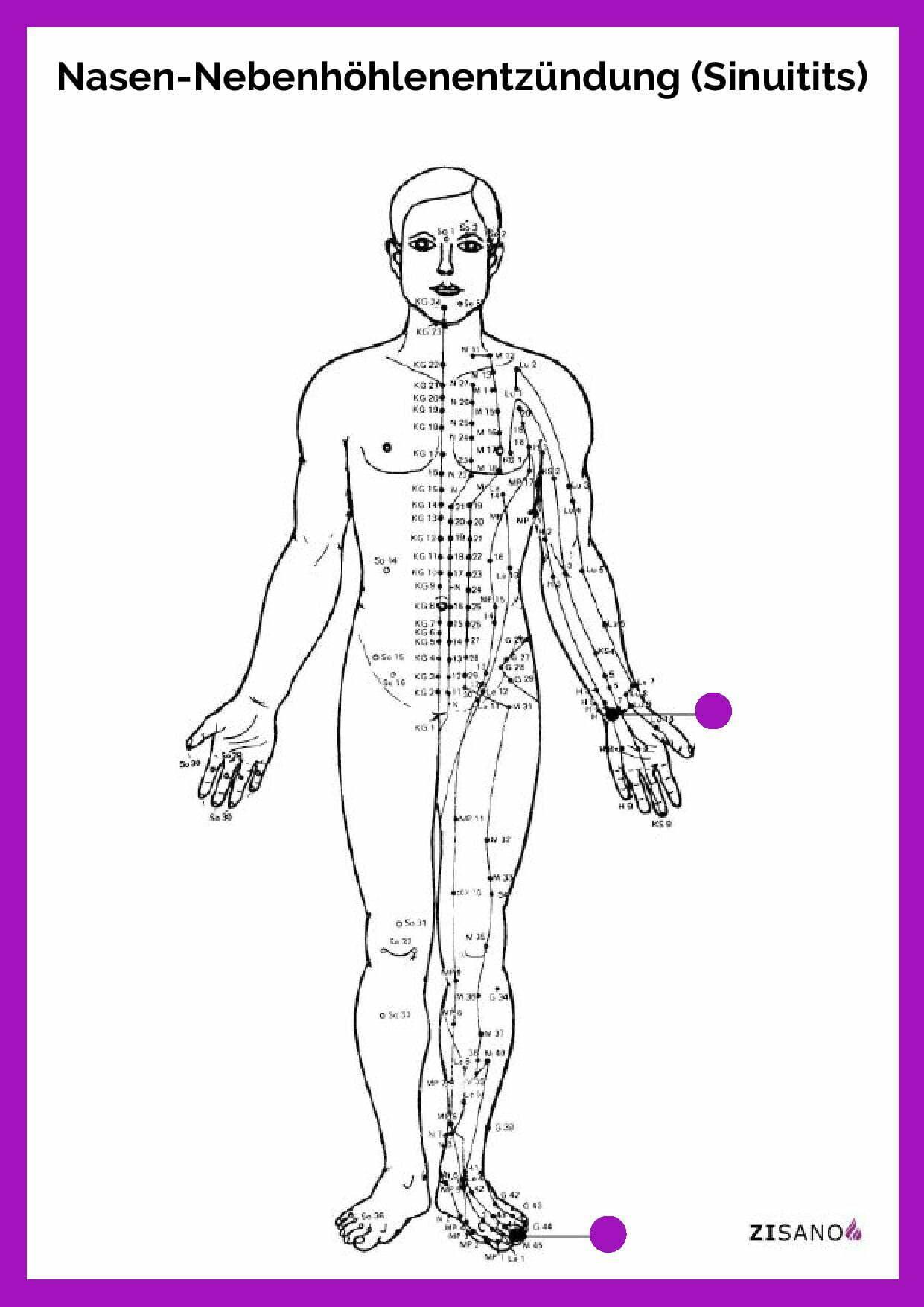 Meridiane -Nasen-Nebenhöhlenentzündung - Sinuitis - Beschwerden