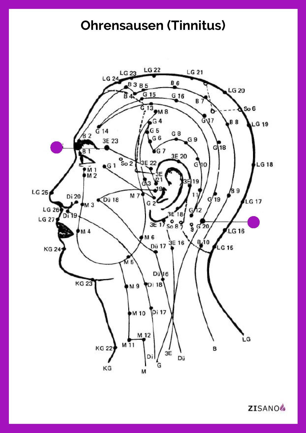 Ohrensausen Tinnitus Beschwerden Ursachen Schmerzlinderung Behandlung