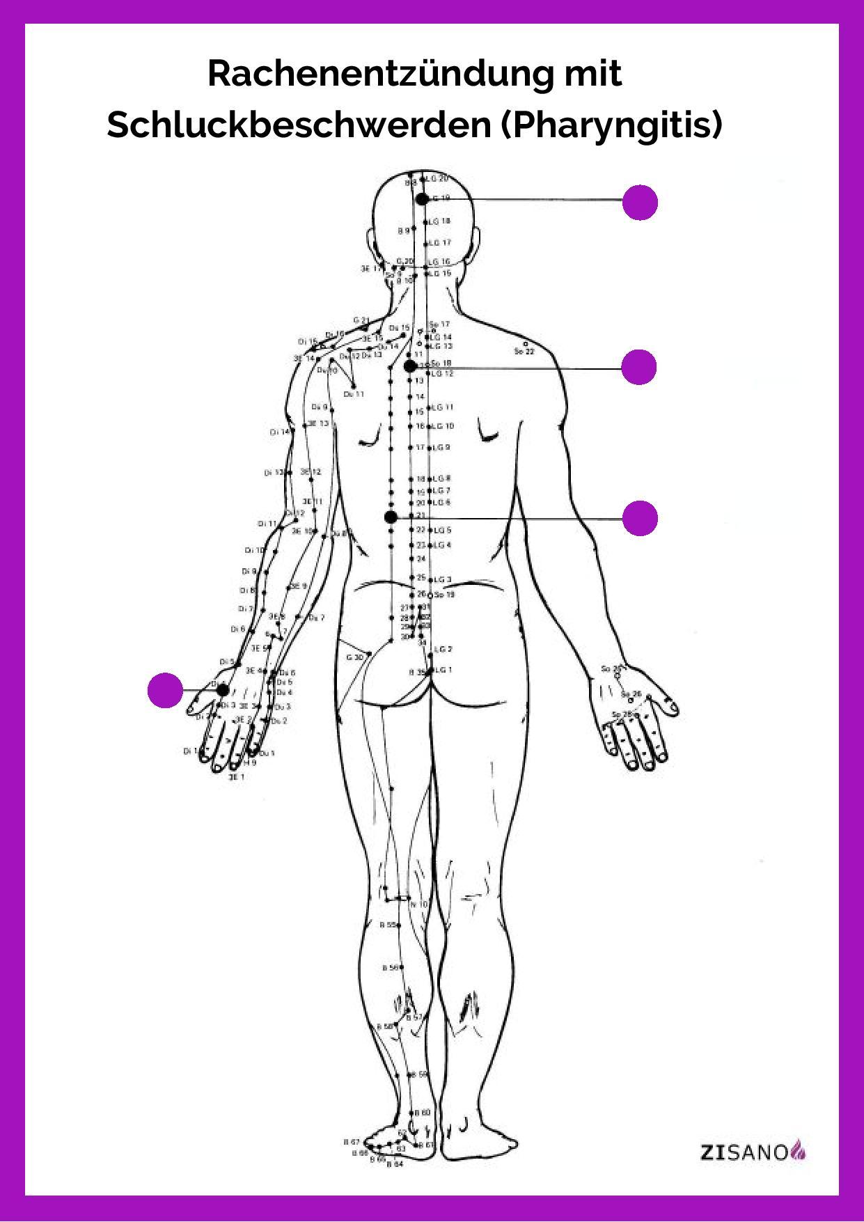 Meridiane Rachen- und Schlundschmerzen Beschwerden
