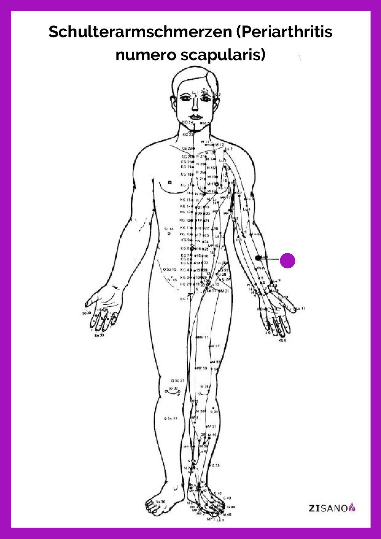 Meridiane - Schulterarmschmerzen - Beschwerden
