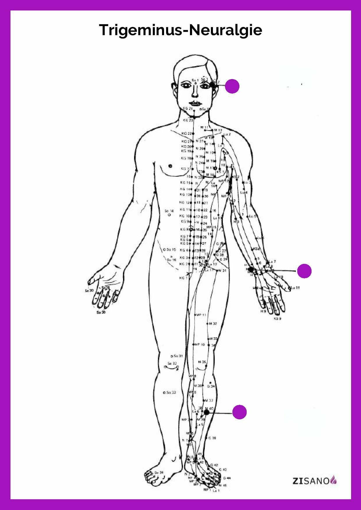 Meridiane - Trigeminus - Neuralgie - Unterstützung