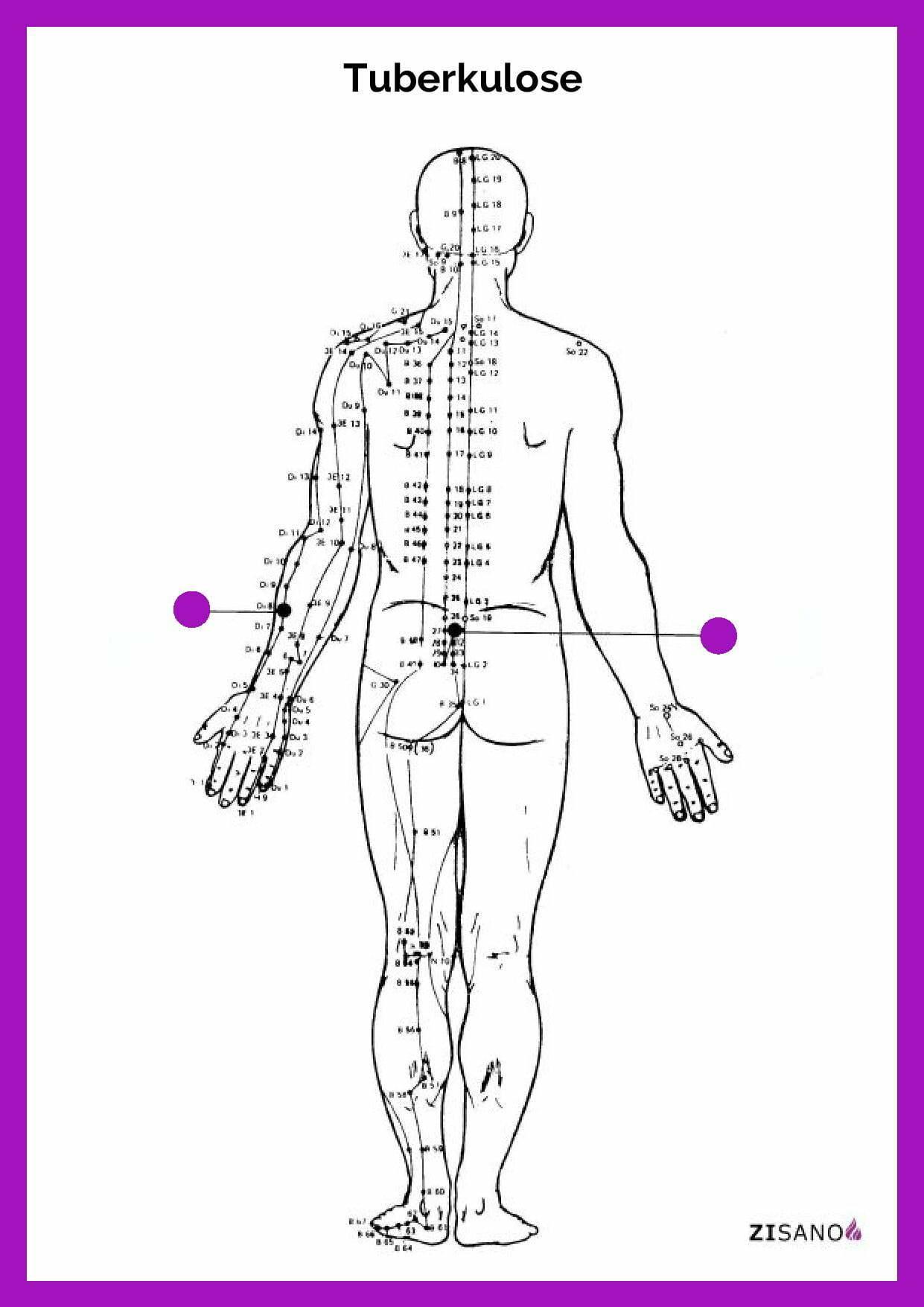 Meridiane - Tuberkulose - Linderung