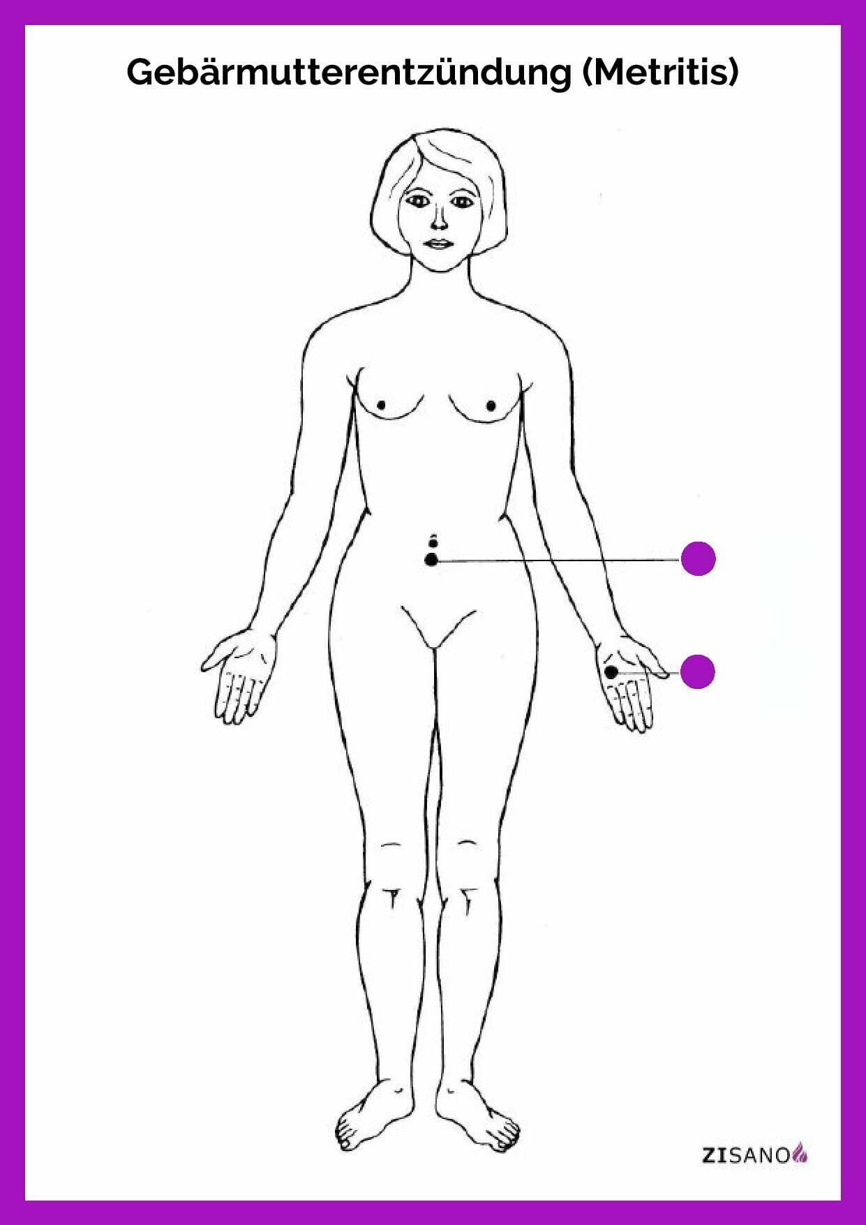Meridiane - Gebärmutterentzündung - Schmerzlinderung