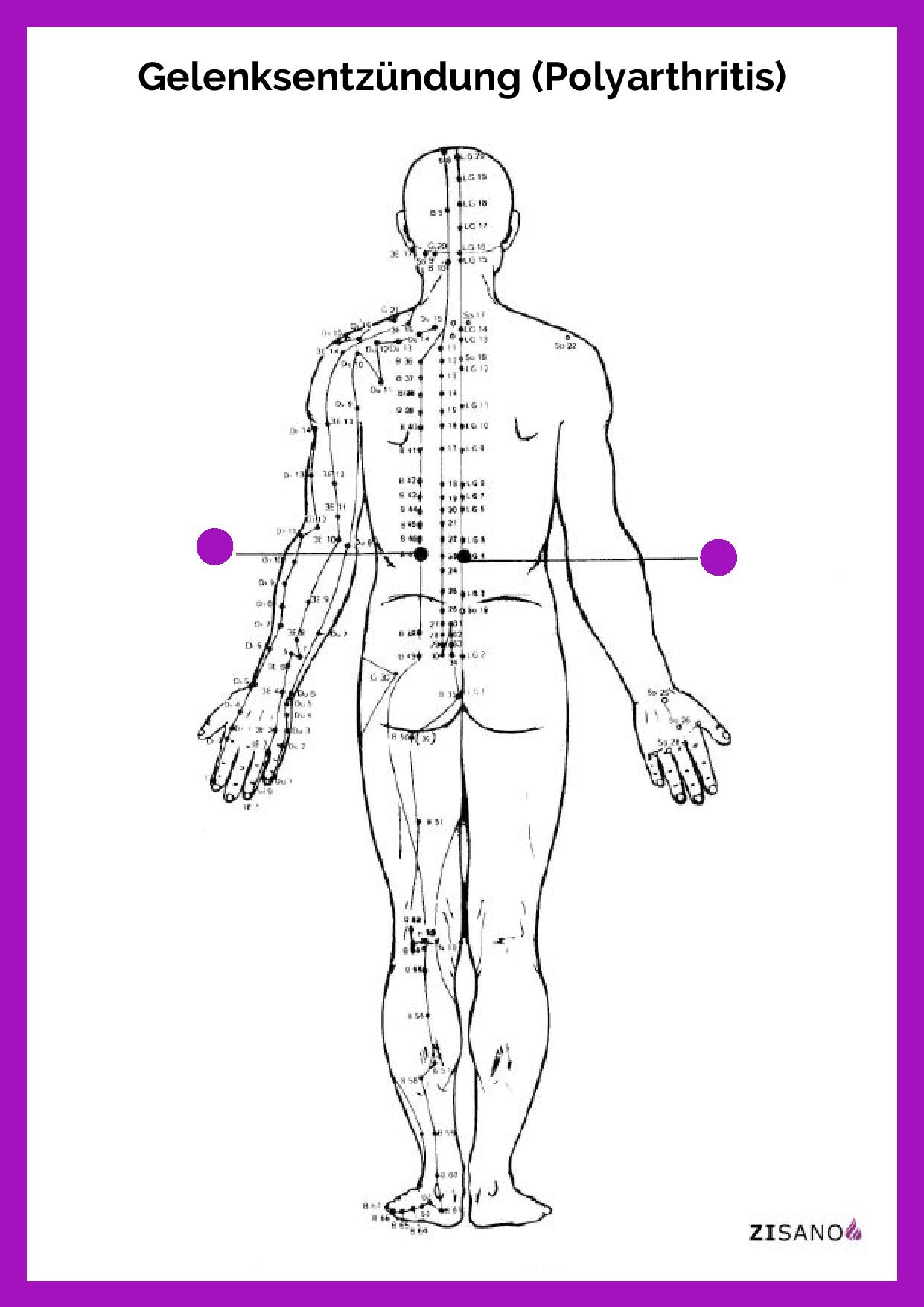 Meridiane - Gelenksentzündung - Behandlung