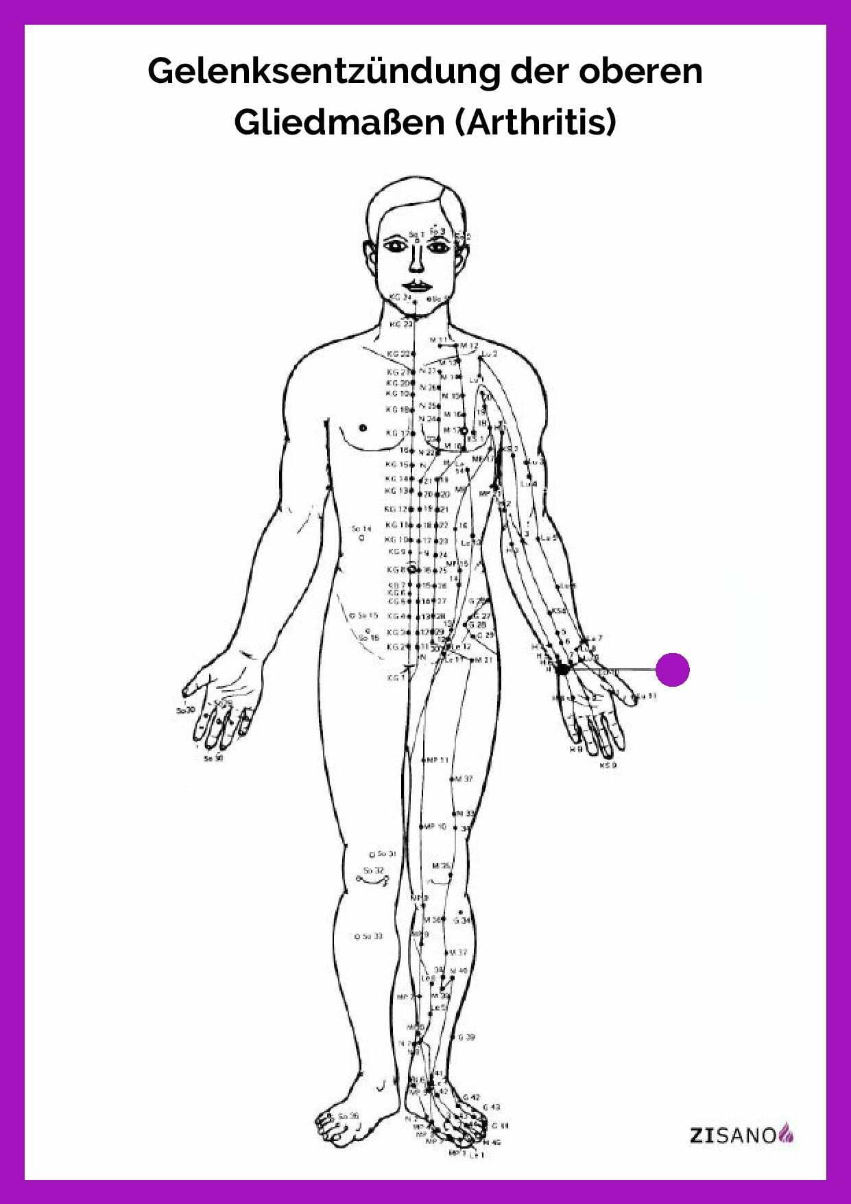 Meridiane - Gelenksentzündung der oberen Gliedmaßen (Arthritis)- Behandlung