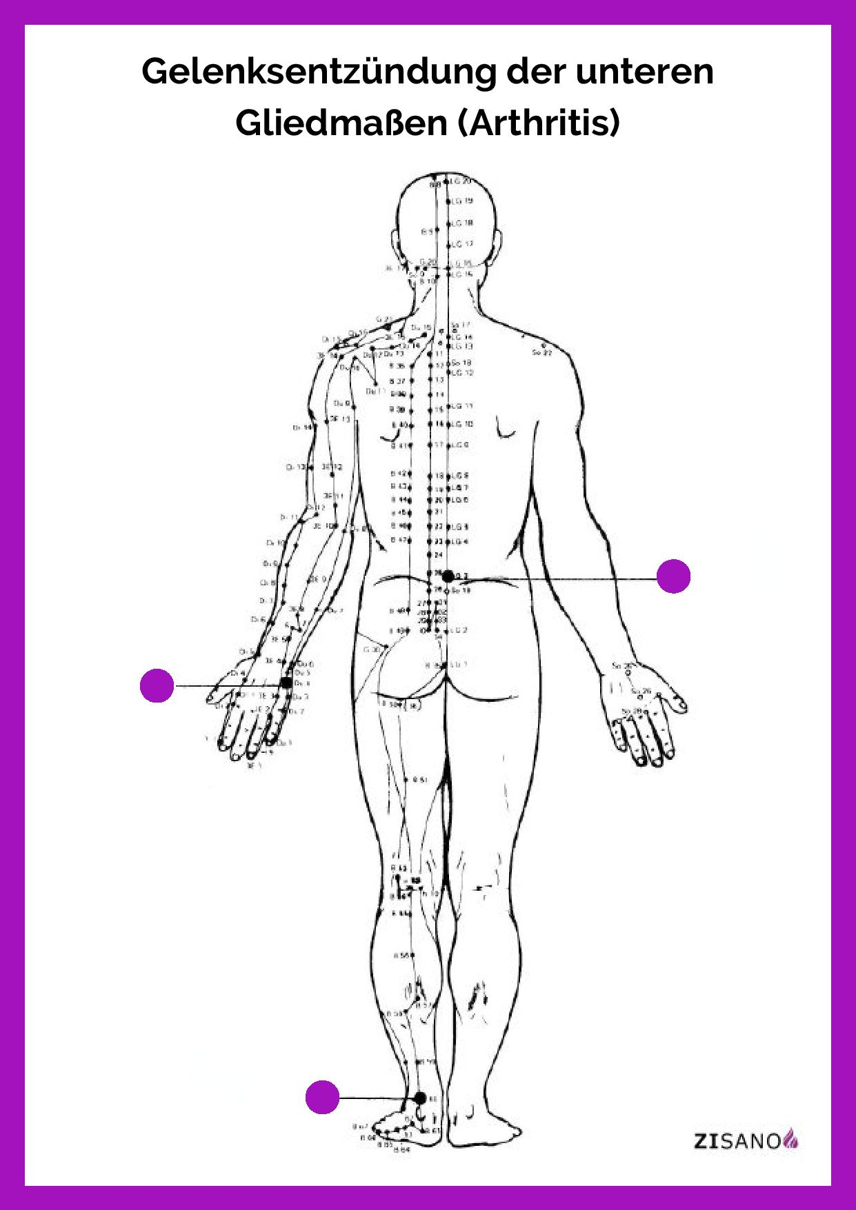 Meridiane - Gelenksentzündung der unteren Gliedmaßen (Arthritis)- Behandlung