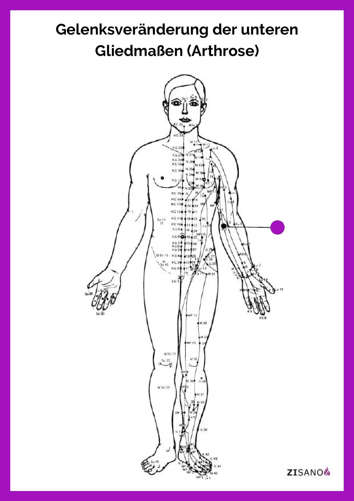 Meridiane - Gelenksveränderung der unteren Gliedmaßen (Arthrose)- Behandlung