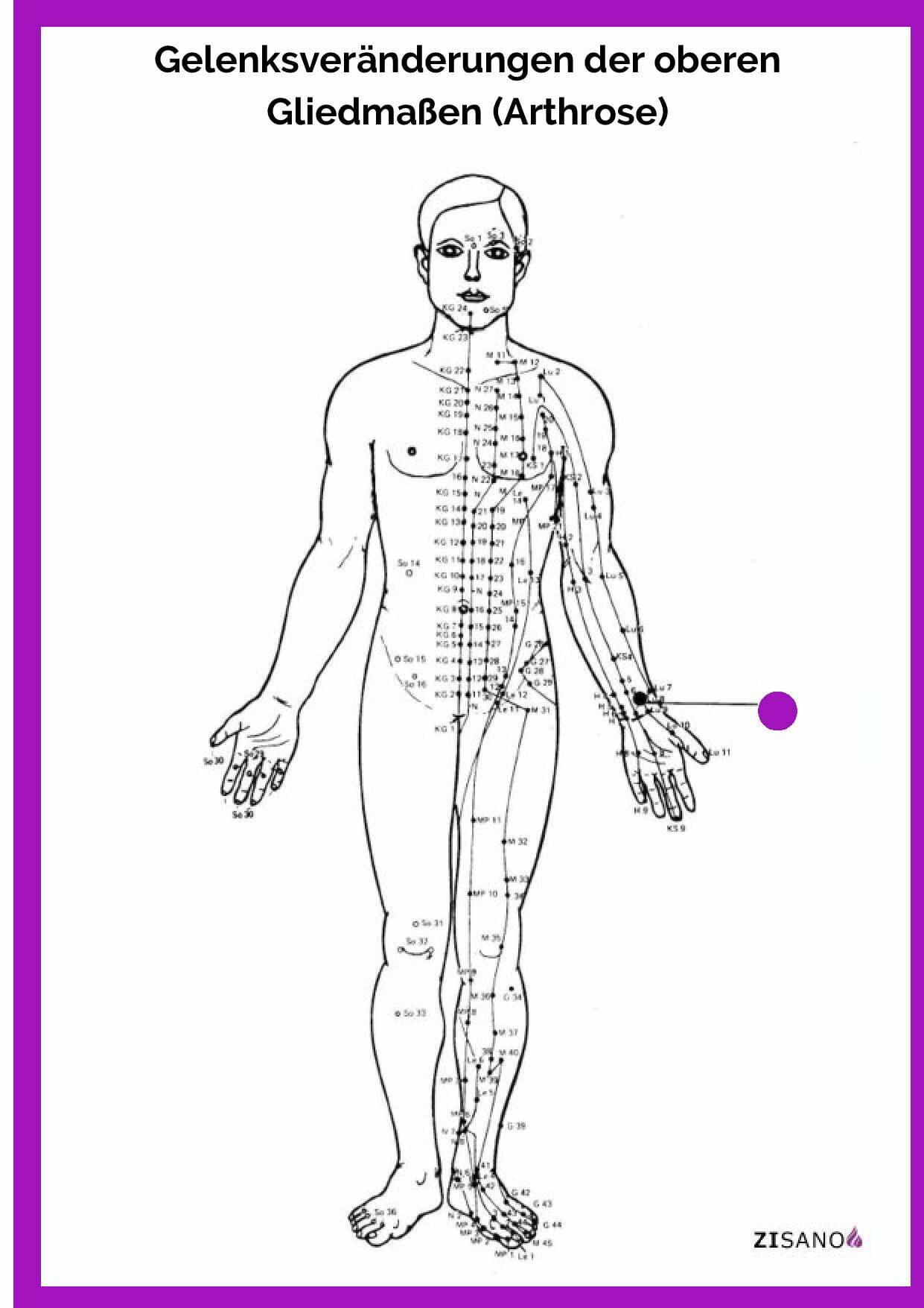 Meridiane - Arthrose- Behandlung