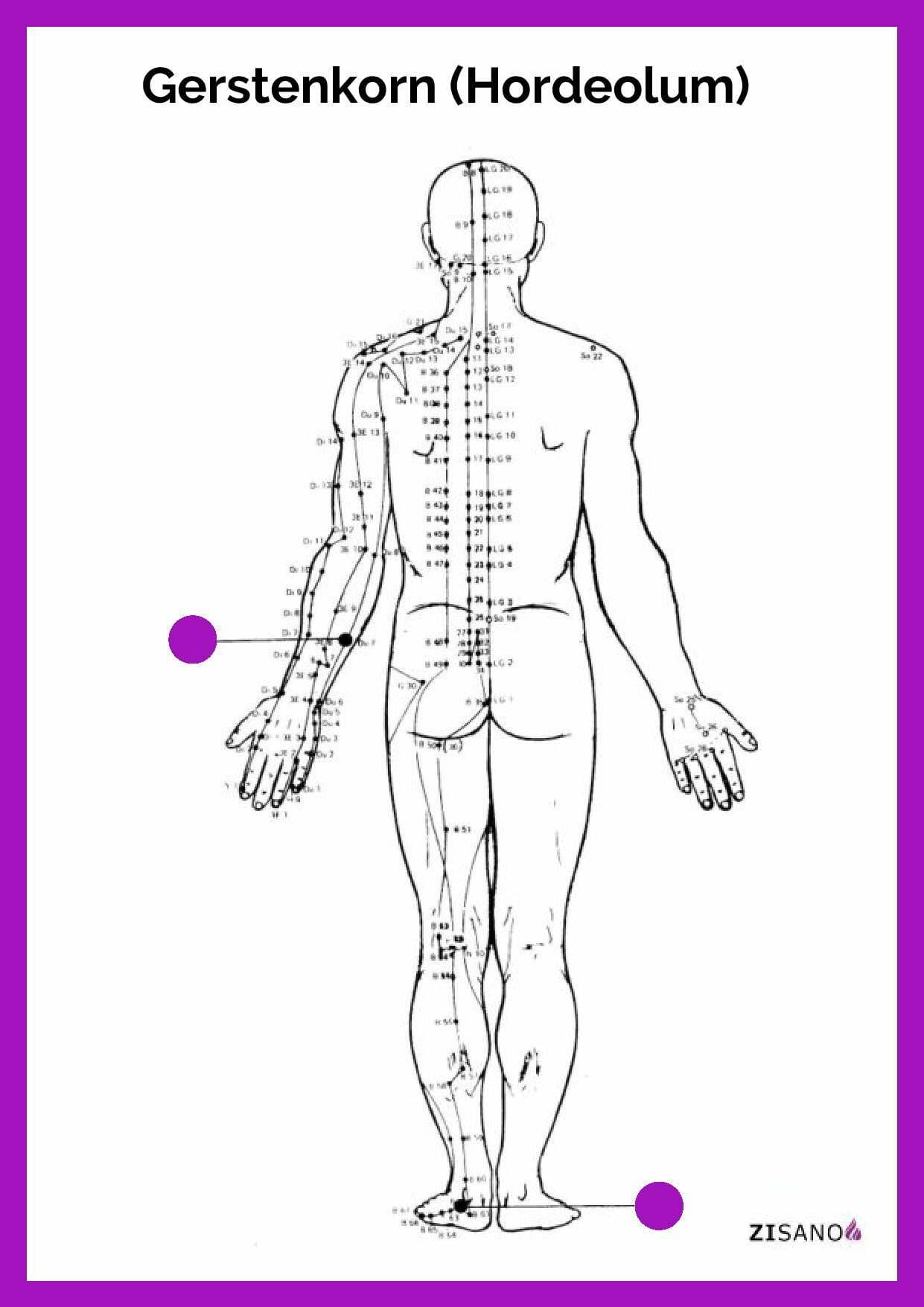 Meridiane - Gerstenkorn - Schmerzlinderung