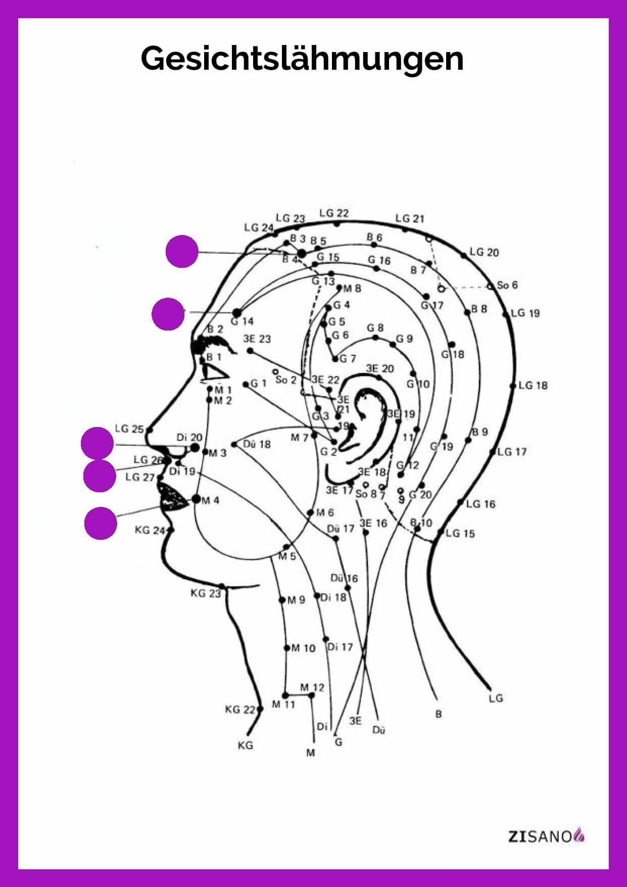 Meridiane - Gesichtslähmungen- Behandlung