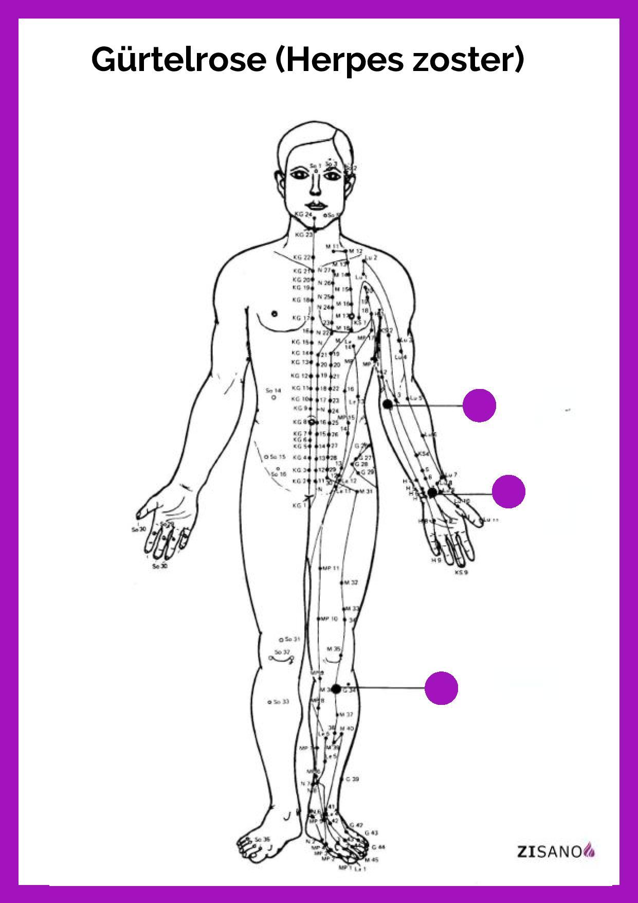 Meridiane - Gürtelrose (Herpes zoster)- Schmerzlinderung