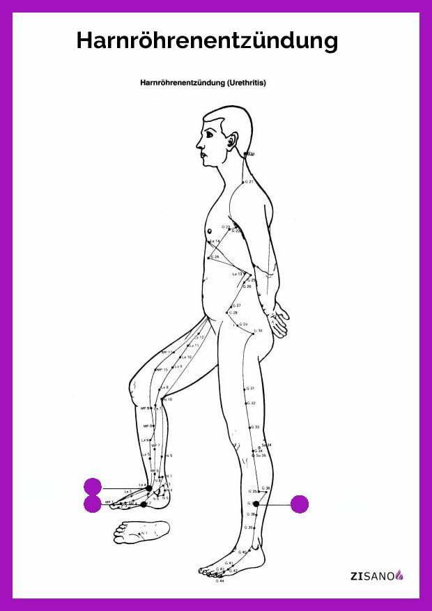 Meridiane - Harnröhrenentzündung- Schmerzlinderung