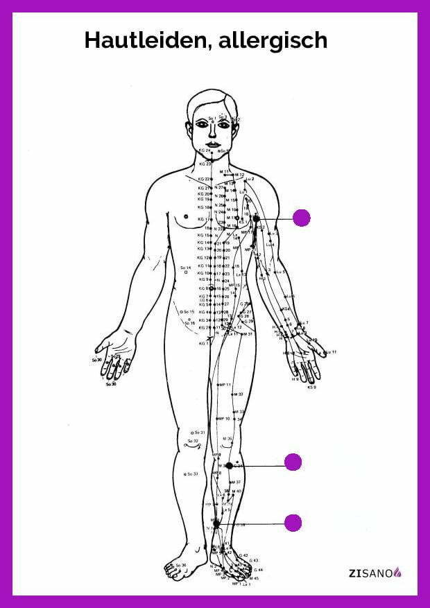 Meridiane - Hautleiden, allergisch- Behandlung
