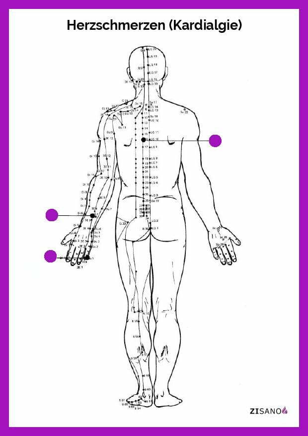 Meridiane - Herzschmerzen (Kardialgie)- Schmerzlinderung