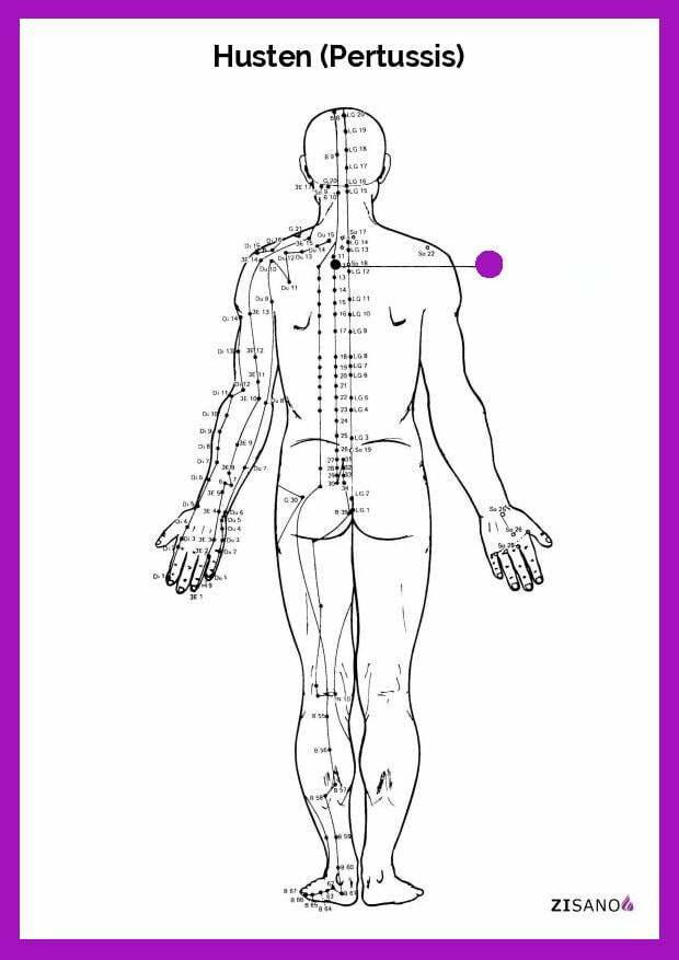 Meridiane - Husten (Pertussis)- Schmerzlinderung