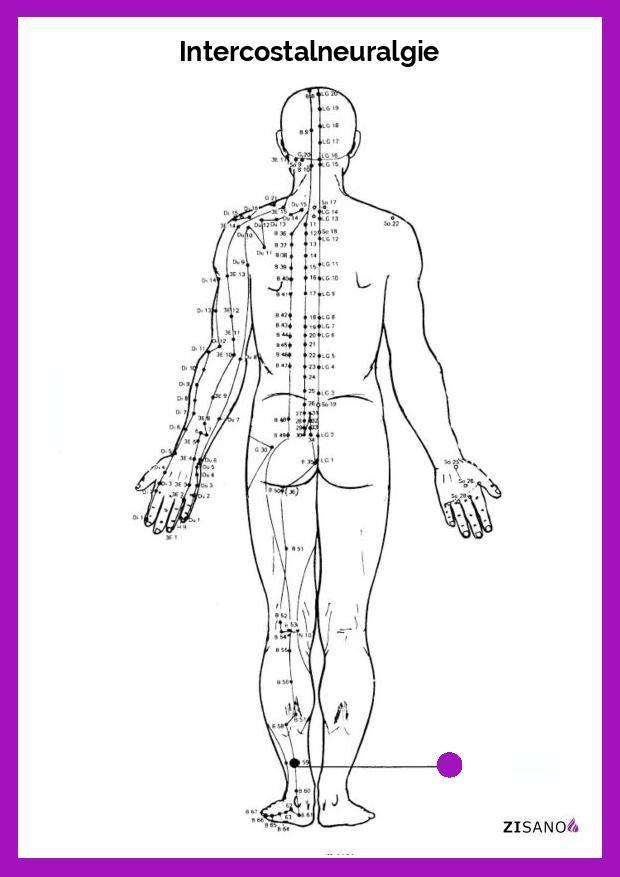 Meridiane - Intercostalneuralgie - Behandlung