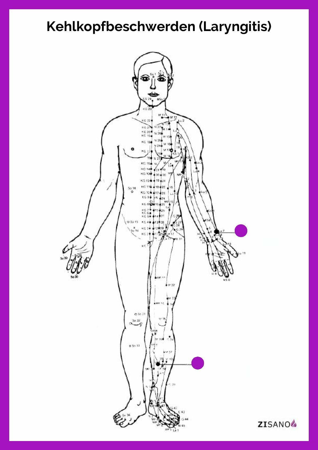 Meridiane - Kehlkopfbeschwerden - Laryngitis - Beschwerden
