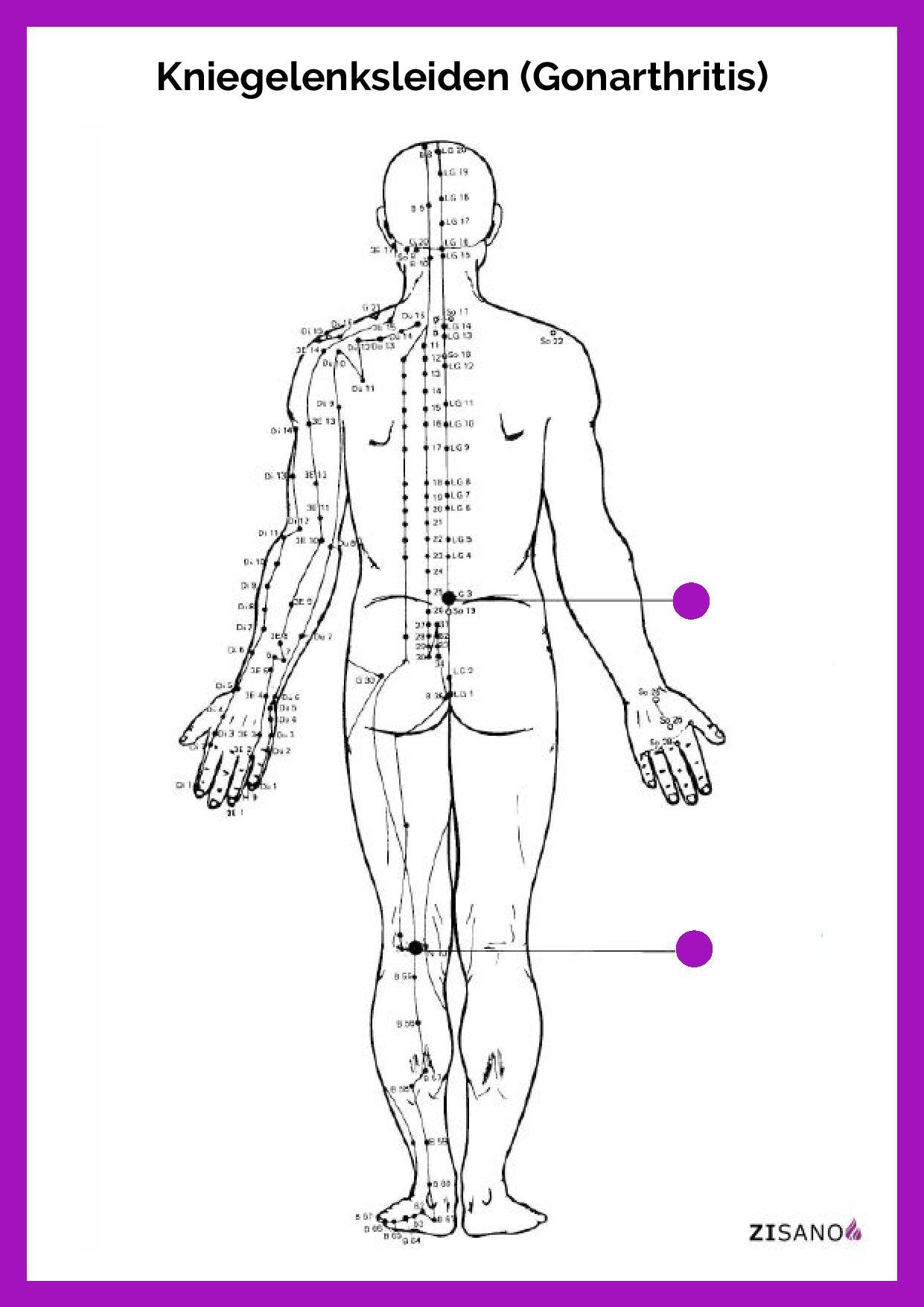 Meridiane - Kniegelenksleiden - Gonarthritis - Beschwerden