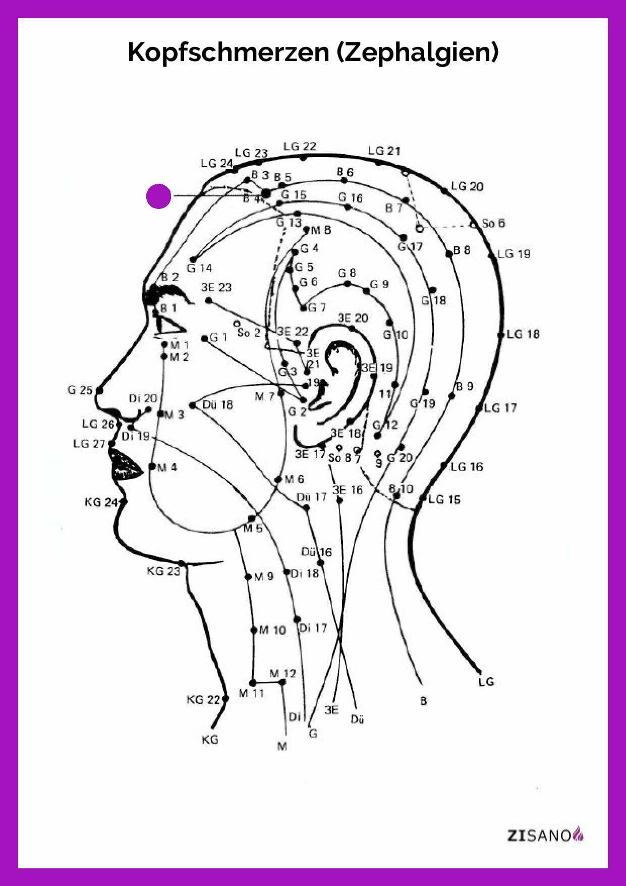 Meridiane - Kopfschmerzen - Zephalgien - Beschwerden