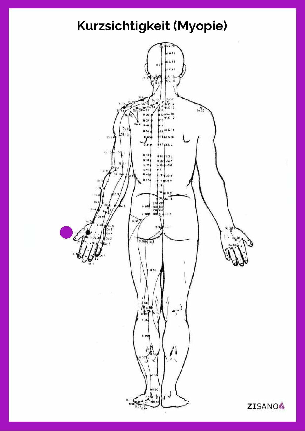 Meridiane - Kurzsichtigkeit - Myopie - Beschwerden