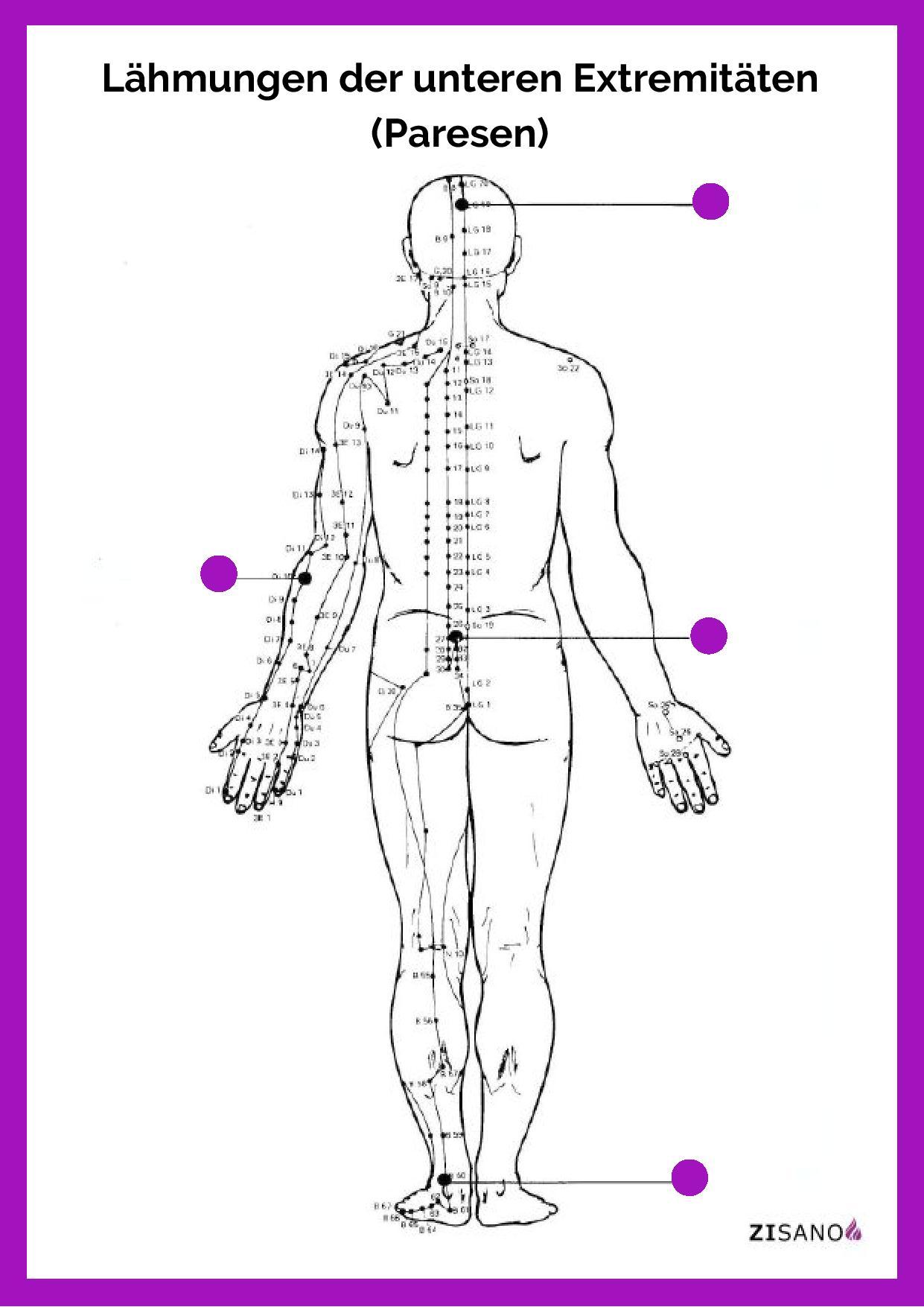Meridiane - Lähmungen der unteren Extremitäten - Paresen - Beschwerden