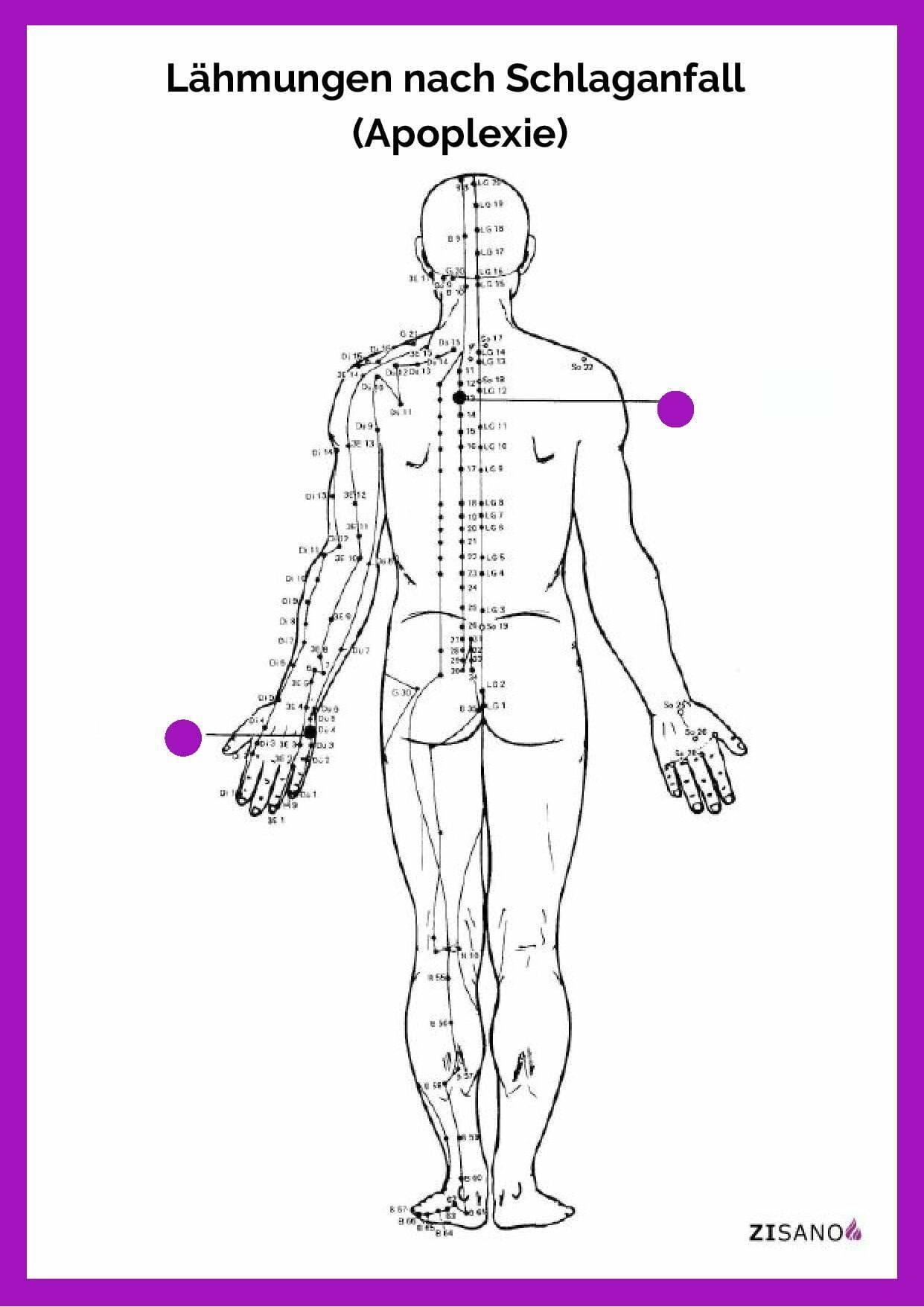 Meridiane - Lähmungen nach Schlaganfall - Apoplexie - Beschwerden