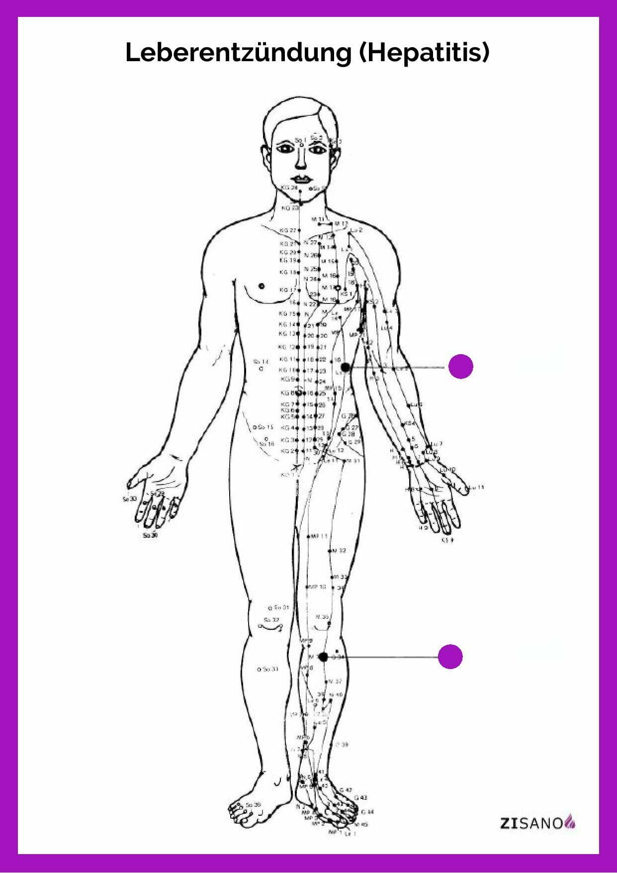 Meridiane - Leberentzündung - Hepatitis - Beschwerden