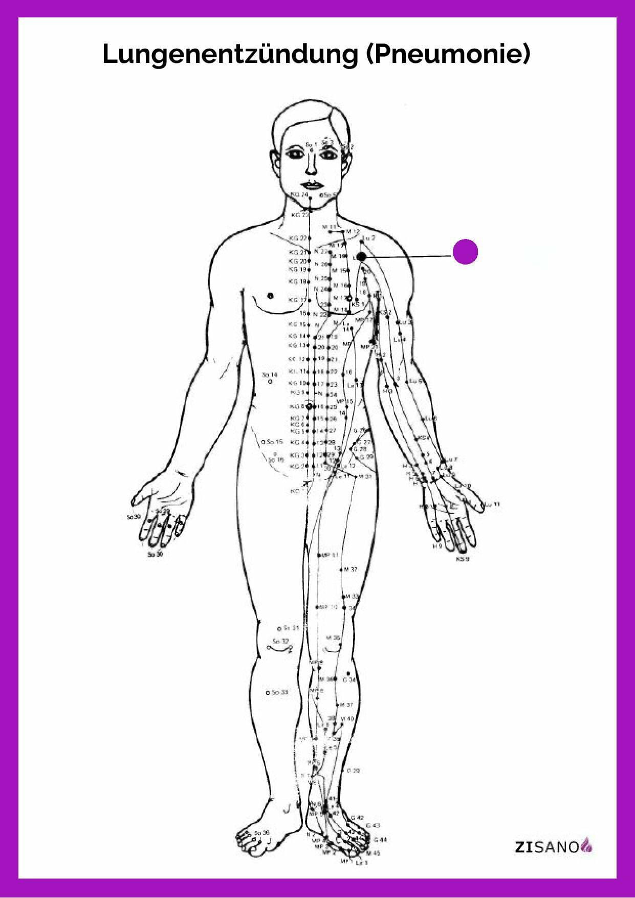 Meridiane - Lungenentzündung - Pneumonie - Beschwerde
