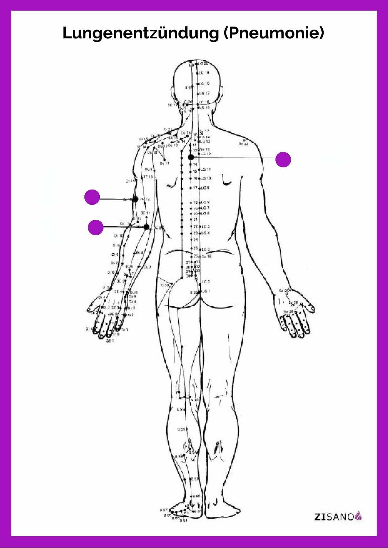 Meridiane - Lungenentzündung - Pneumonie - Beschwerden