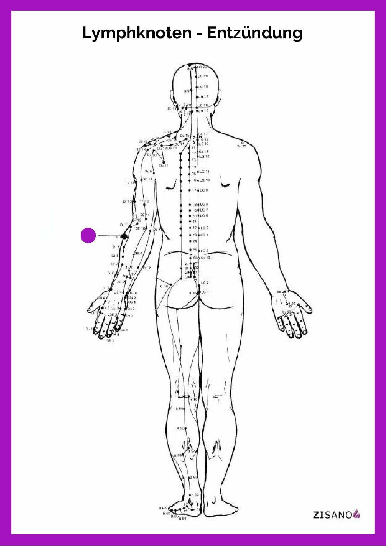 Meridiane - Lymphknoten - Entzündung - Beschwerden