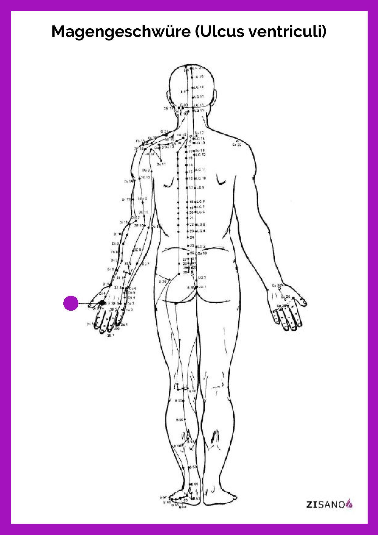 Meridiane - Magengeschwüre - Ulcus ventriculi - Beschwerden