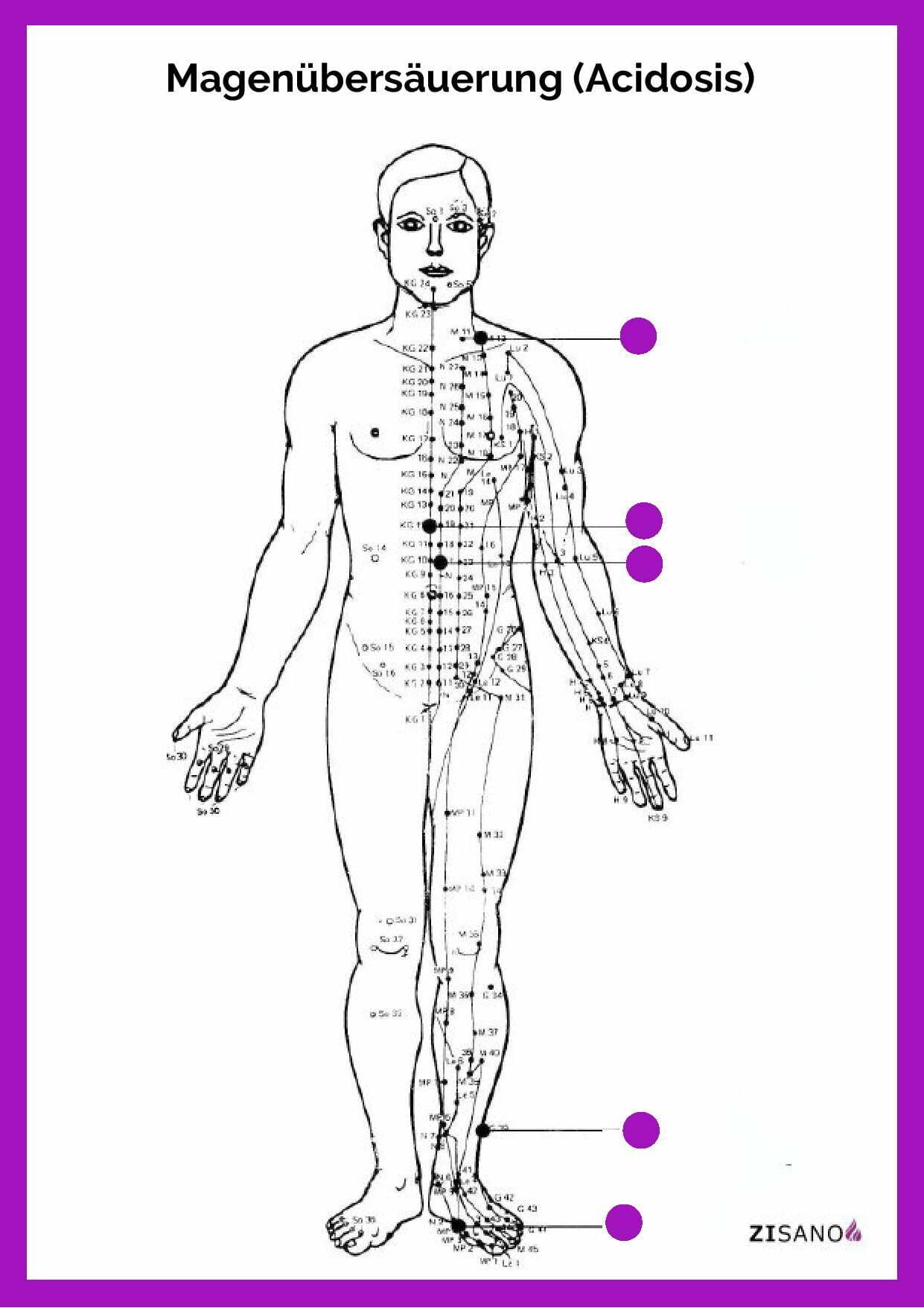 Meridiane - Magenübersäuerung - Acidosis - Beschwerden